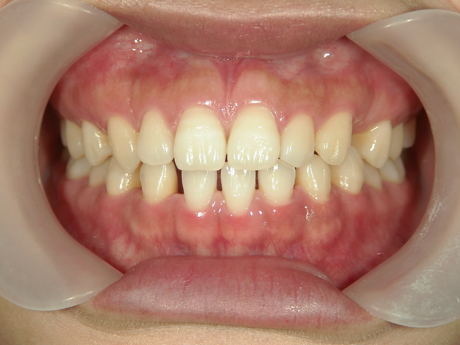 全顎ワイヤー矯正 症例(52)
