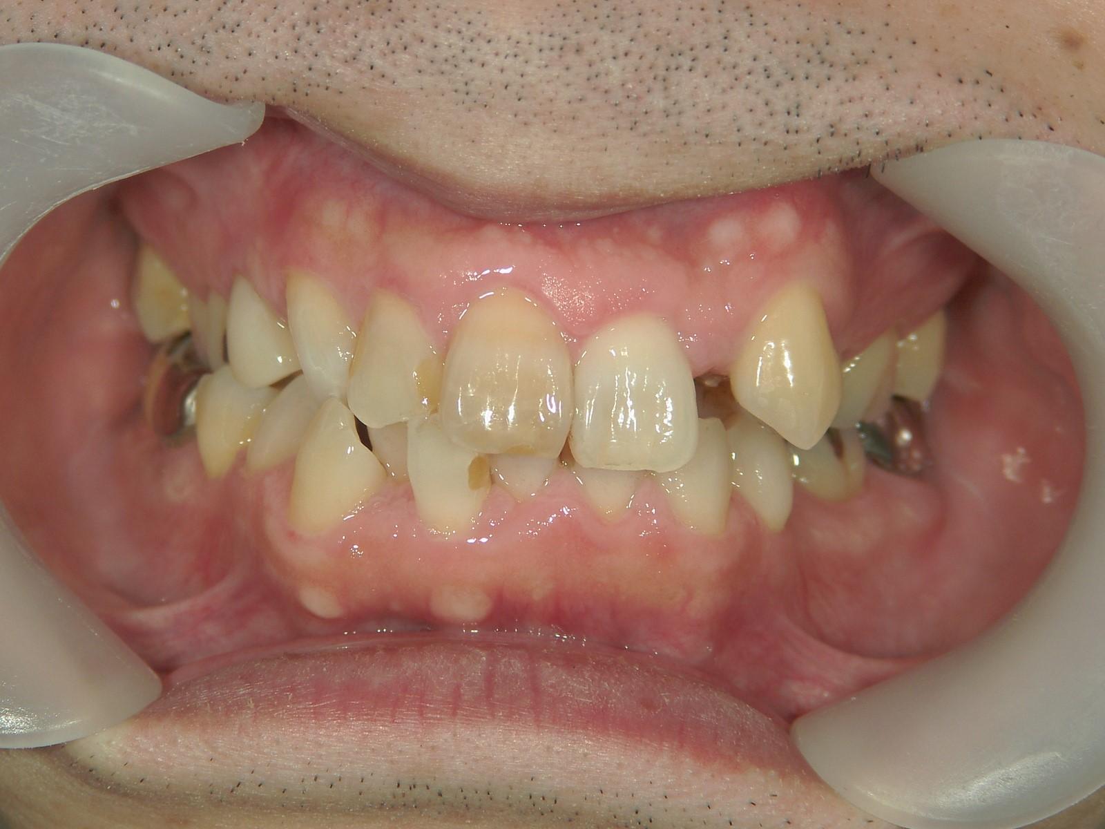 全顎ワイヤー矯正 症例(55)