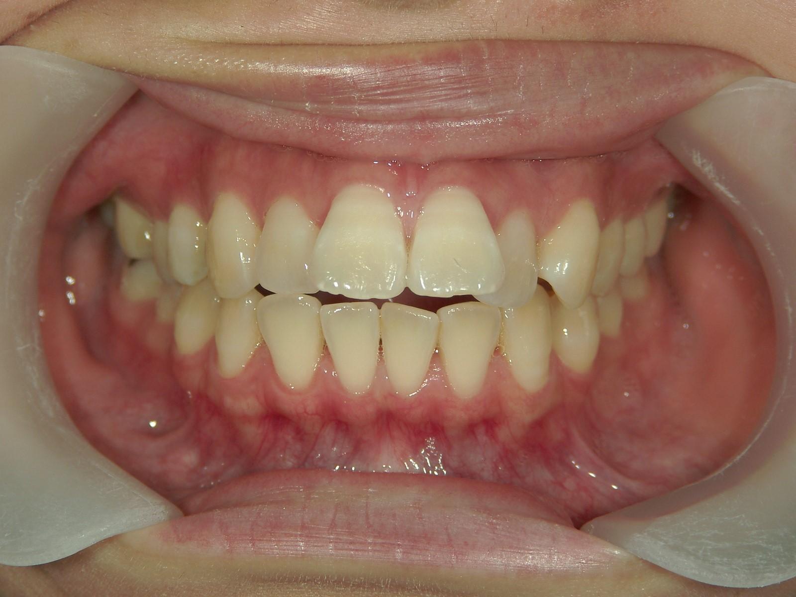 全顎ワイヤー矯正 症例(56)