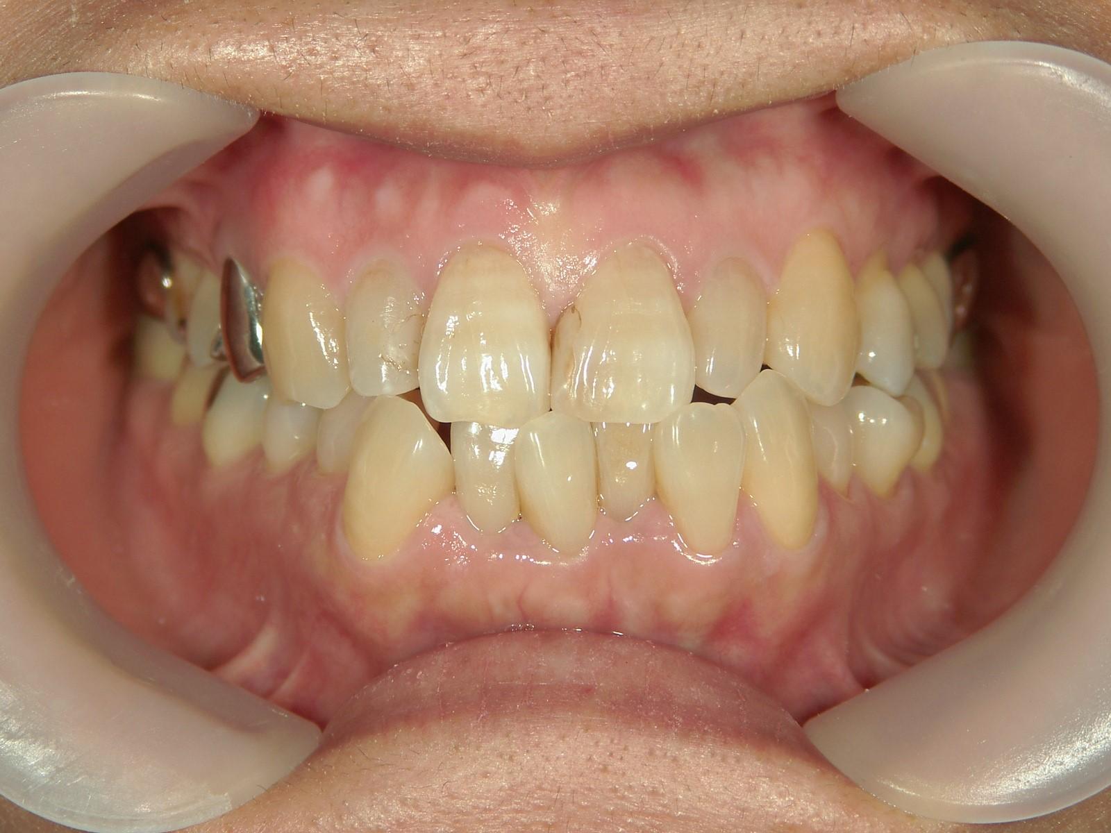 全顎ワイヤー矯正 症例(57)