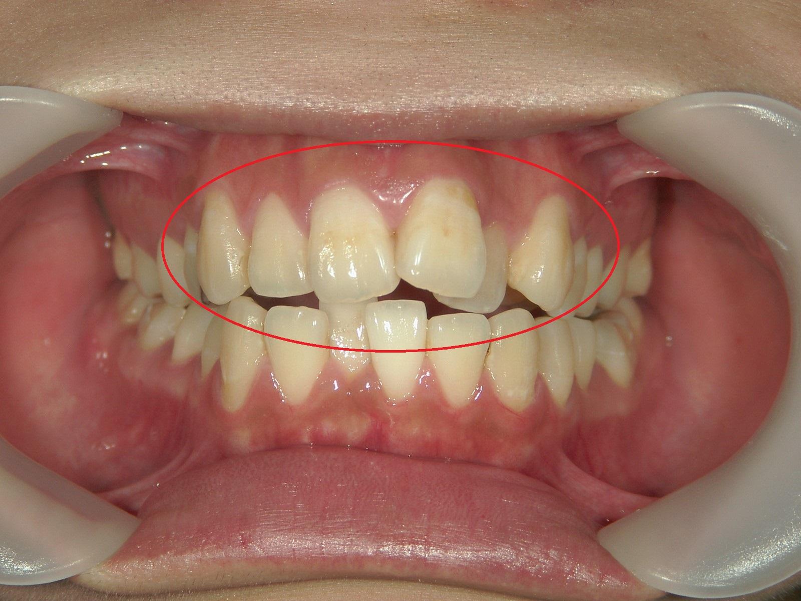 プチ舌側ワイヤー矯正 症例(20)