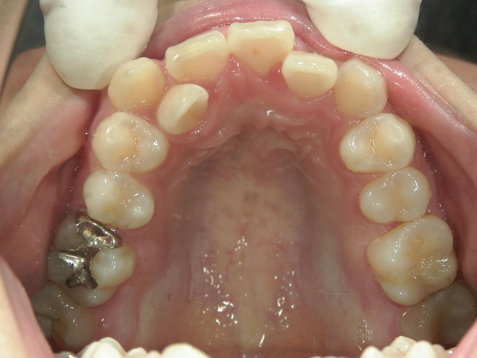 全顎ワイヤー矯正 症例(24)
