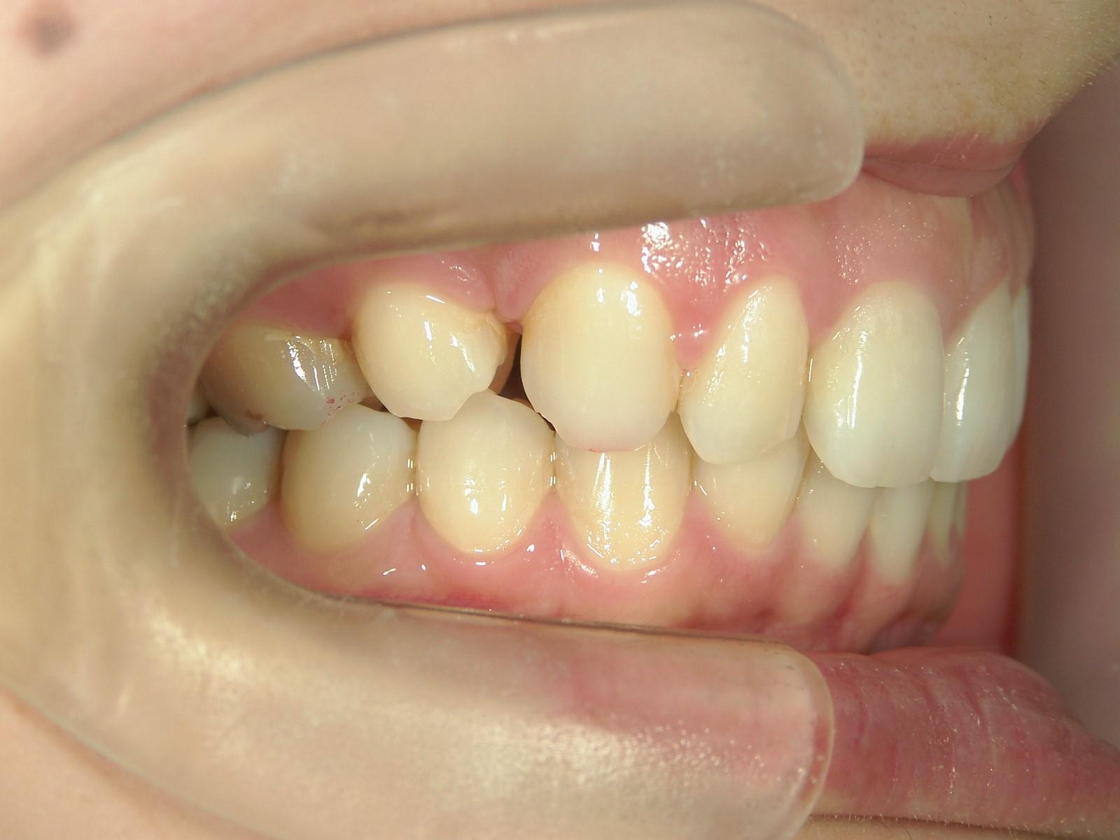 舌側ワイヤー矯正 症例(14)