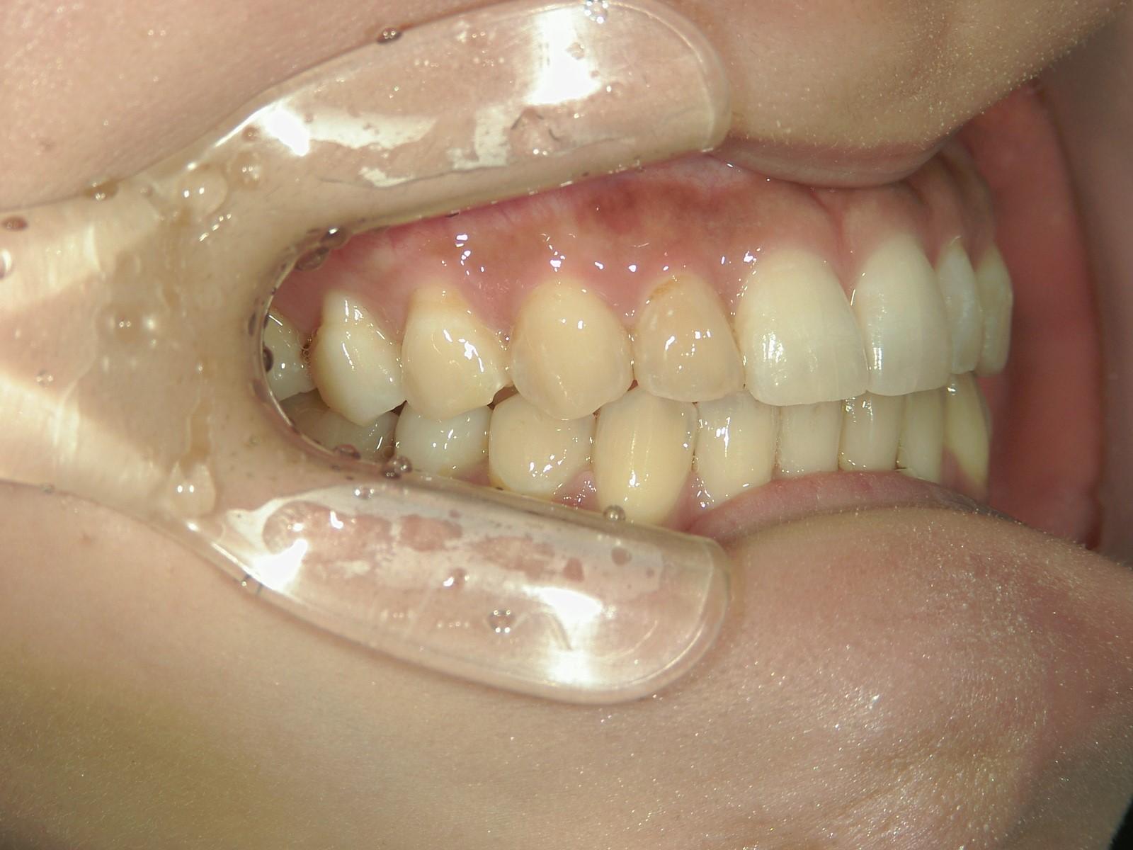 プチ舌側ワイヤー矯正 症例(23)