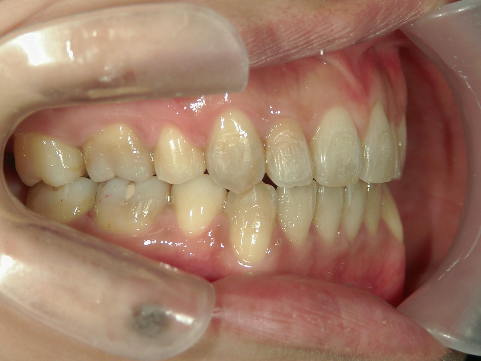 全顎ワイヤー矯正 症例(43)