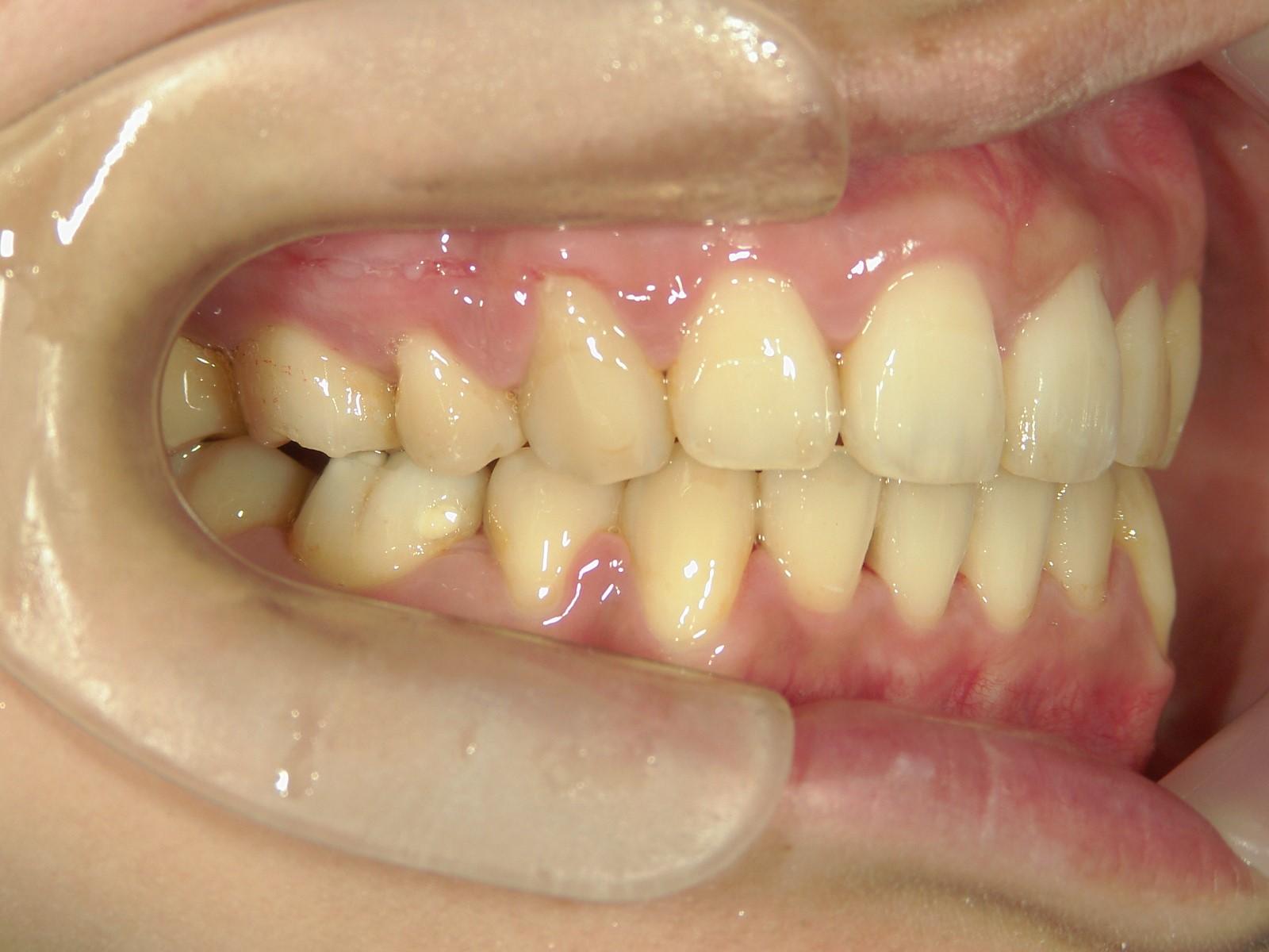 全顎ワイヤー矯正 症例(44)