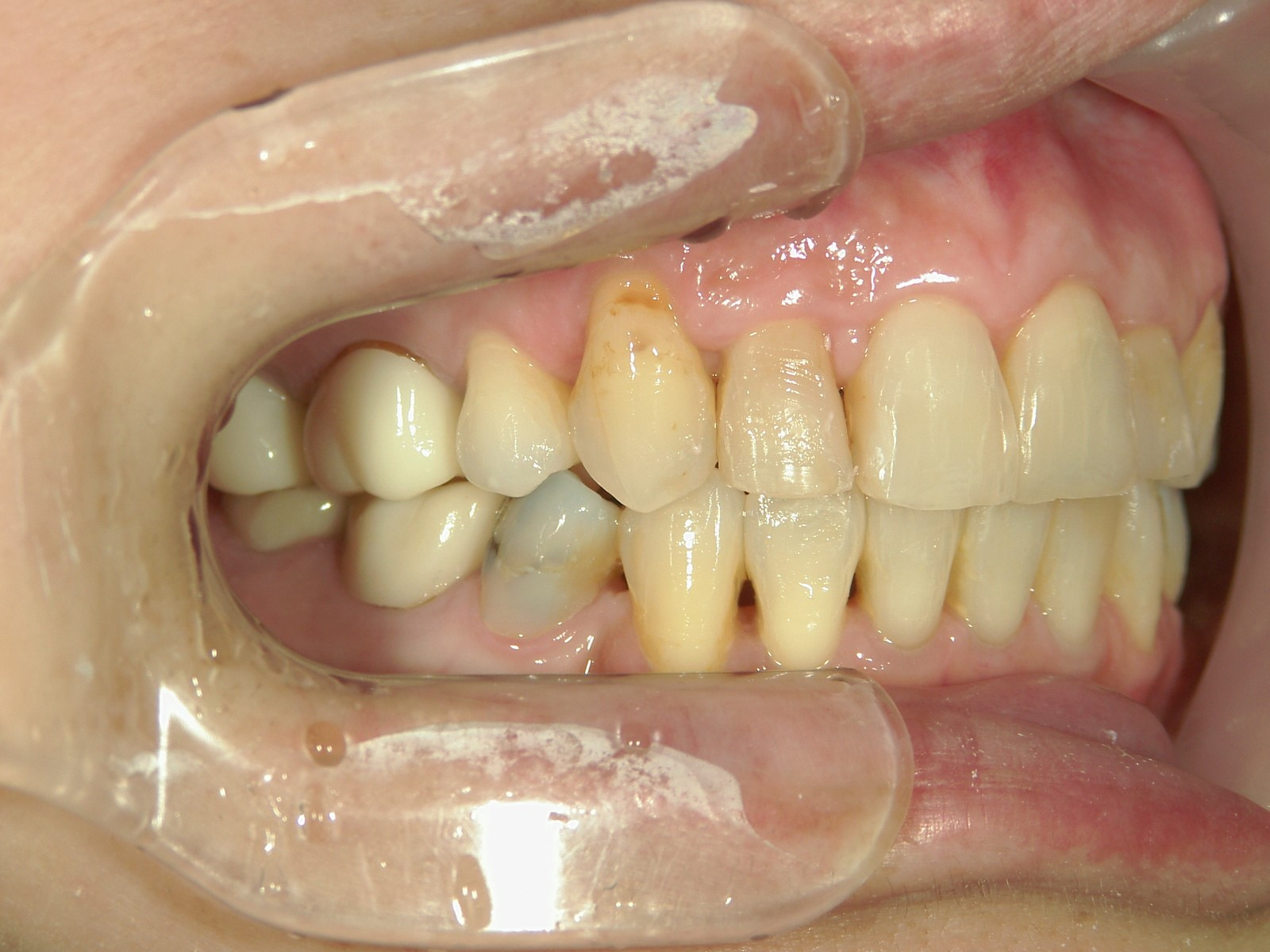 全顎ワイヤー矯正 症例(45)