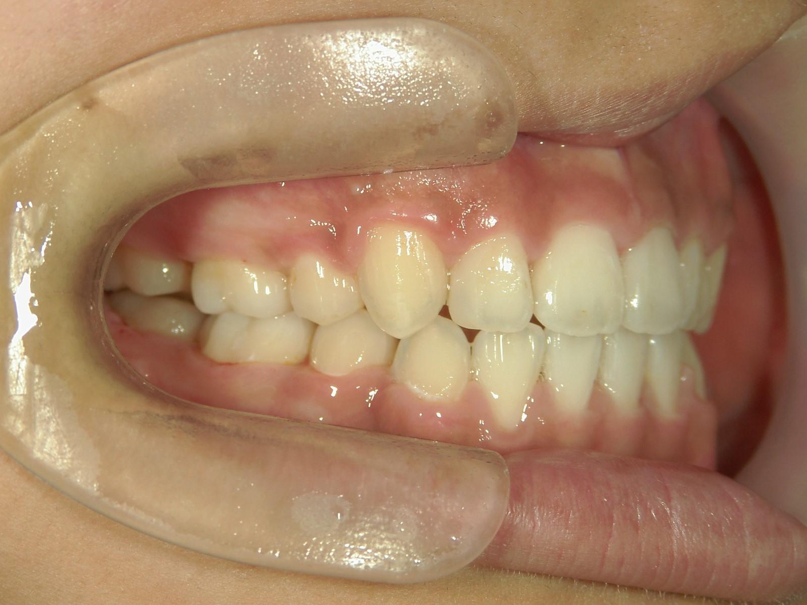 全顎ワイヤー矯正 症例(50)