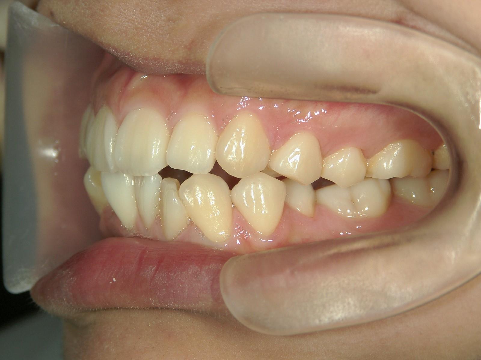 舌側ワイヤー矯正 症例(12)