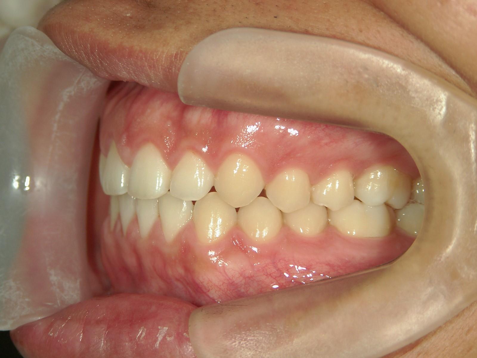舌側ワイヤー矯正 症例(17)