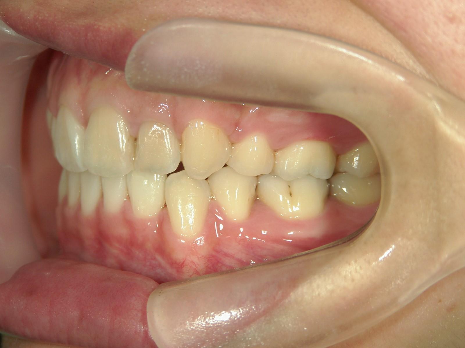 全顎ワイヤー矯正 症例(18)