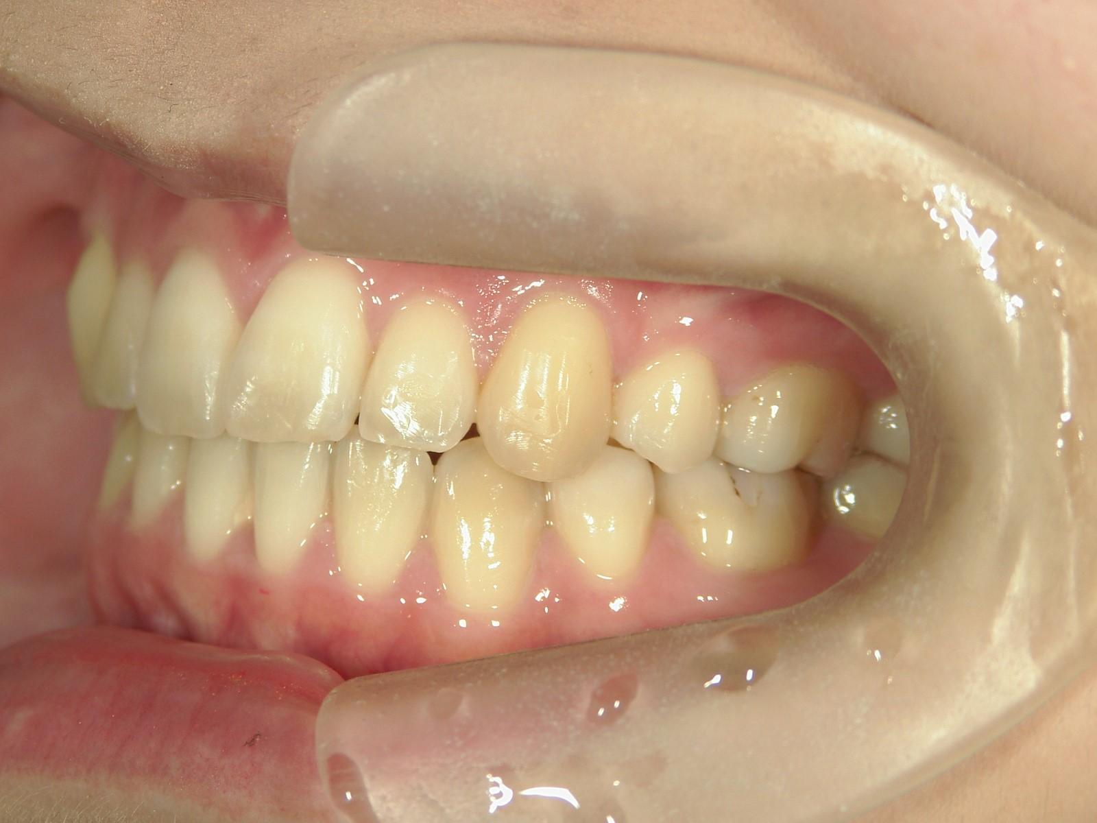 全顎ワイヤー矯正 症例(19)
