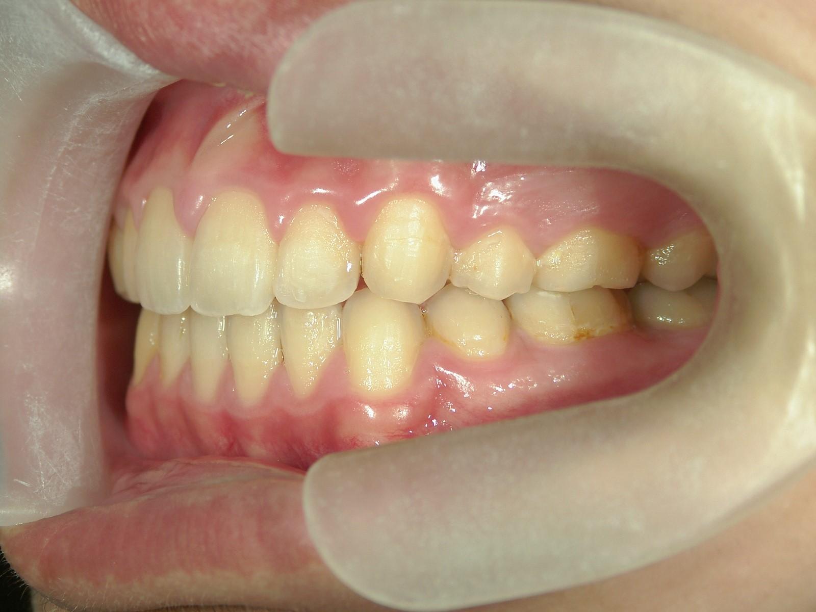 全顎ワイヤー矯正 症例(28)
