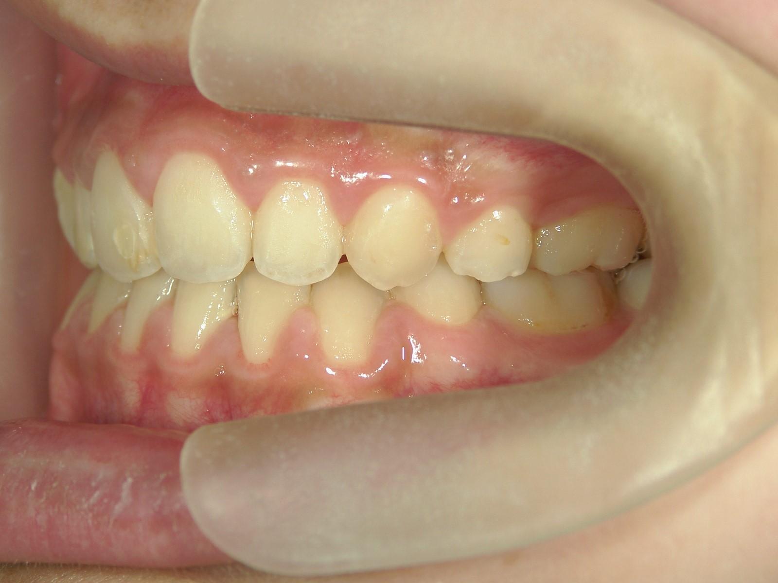 全顎ワイヤー矯正 症例(30)