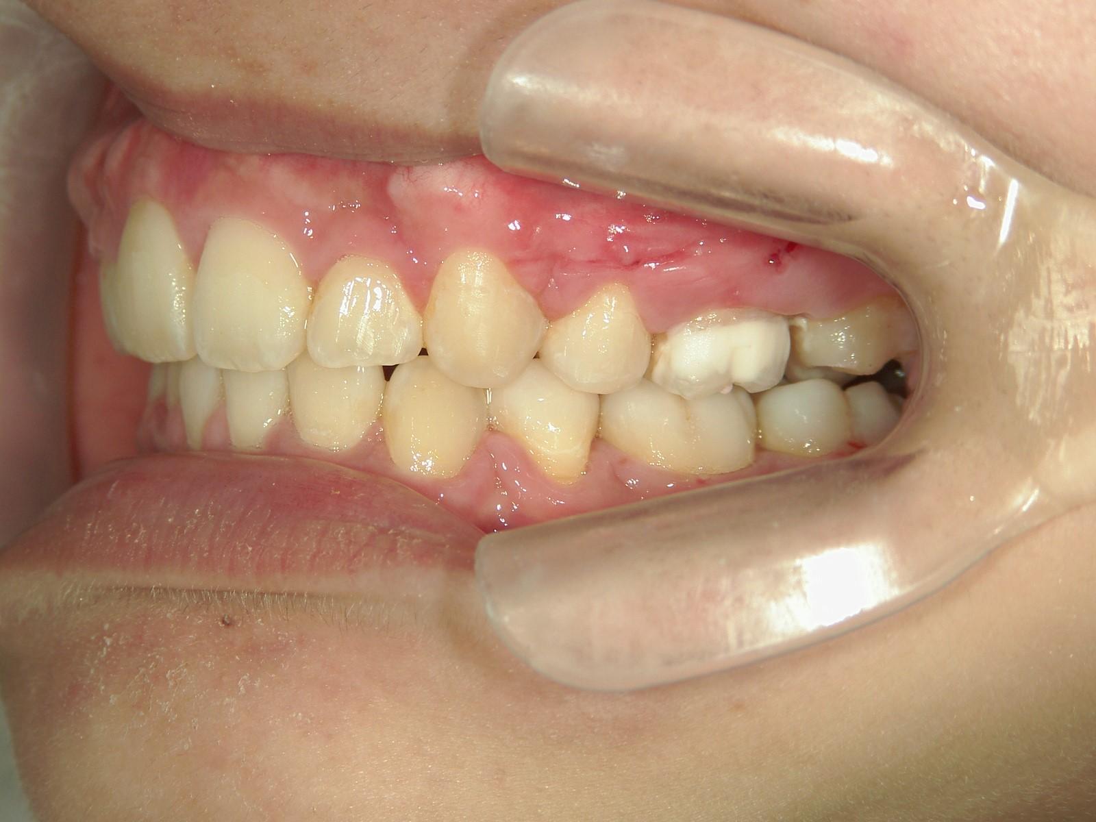 全顎ワイヤー矯正 症例(39)