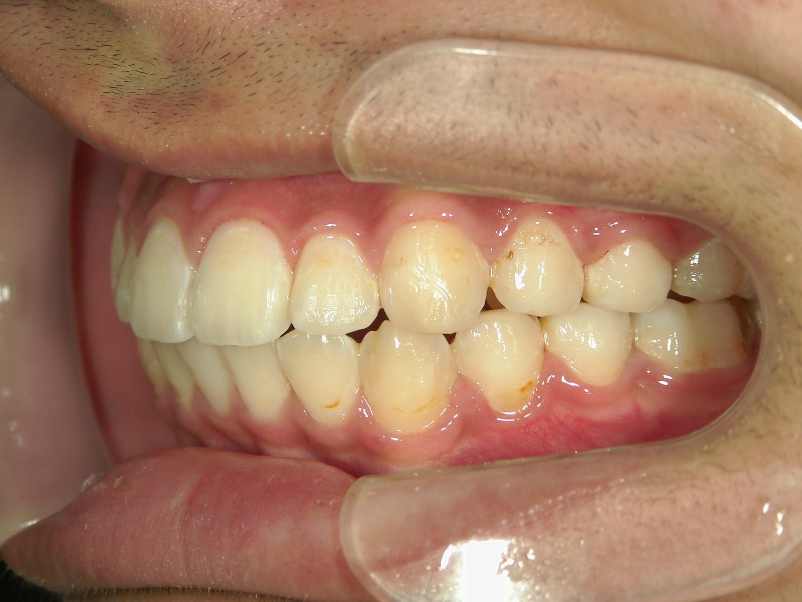 全顎ワイヤー矯正 症例(47)