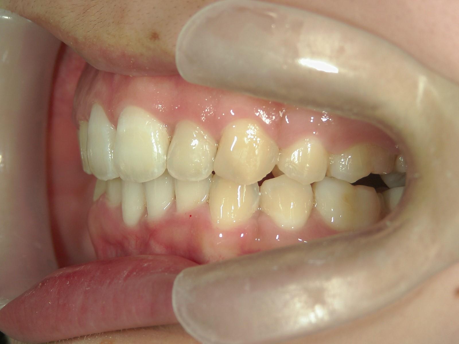 全顎ワイヤー矯正 症例(53)