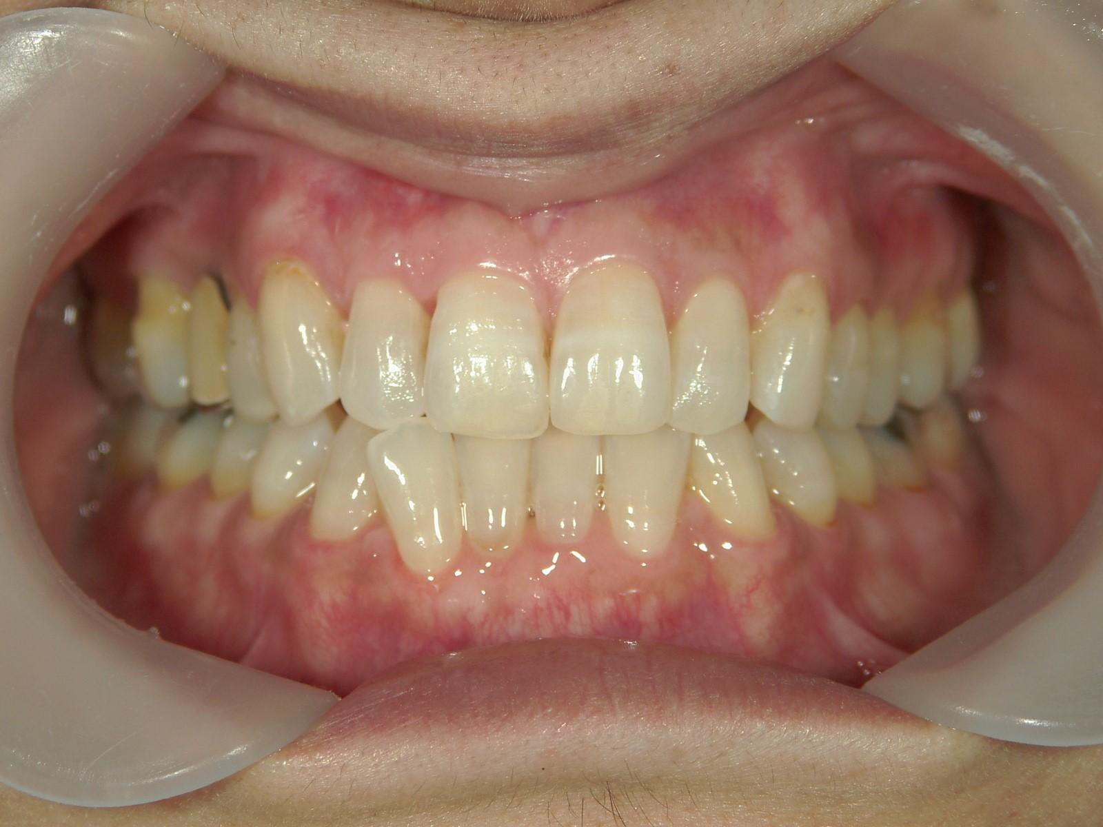 舌側ワイヤー矯正 症例(13)