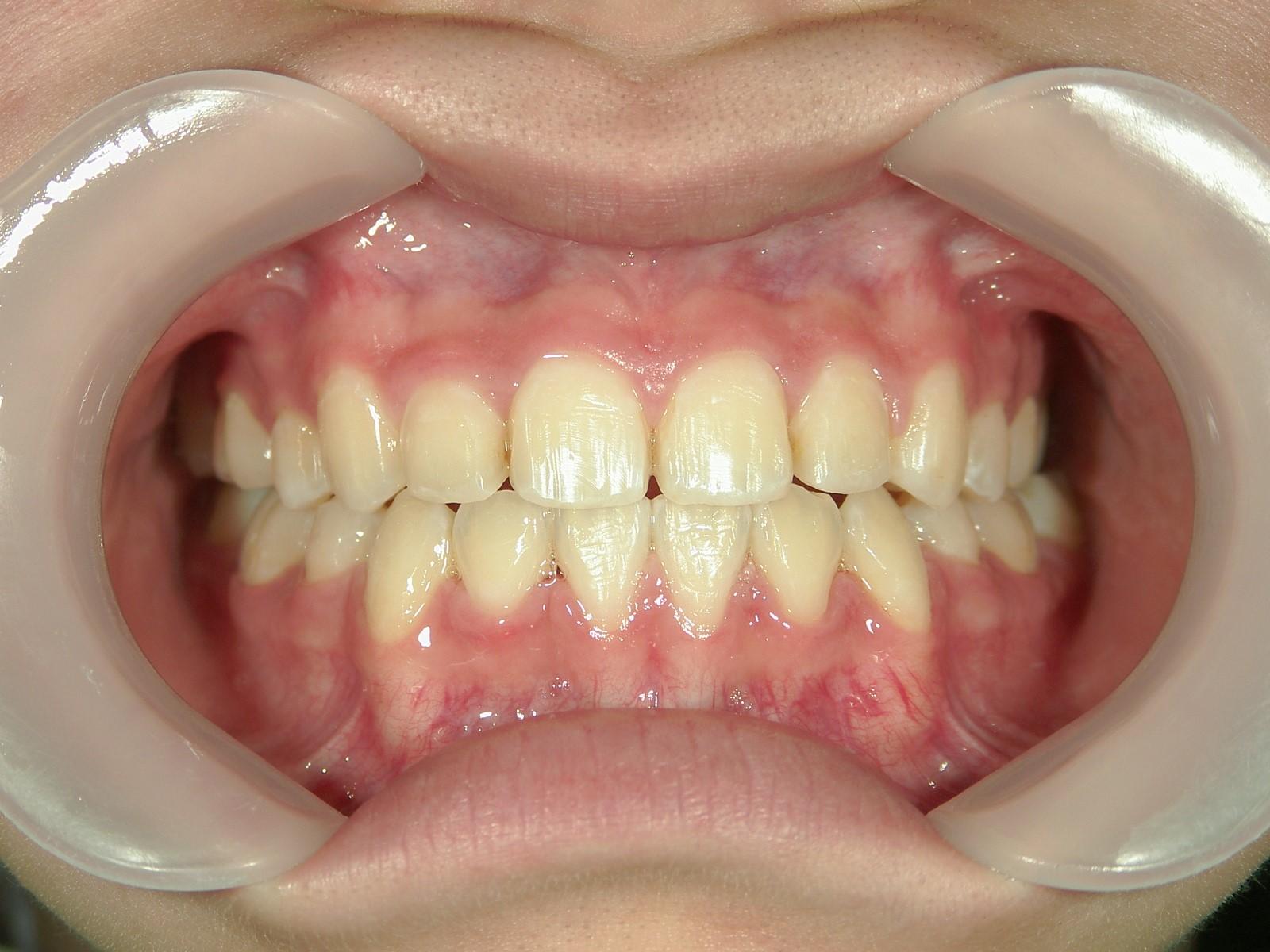 全顎ワイヤー矯正 症例(21)