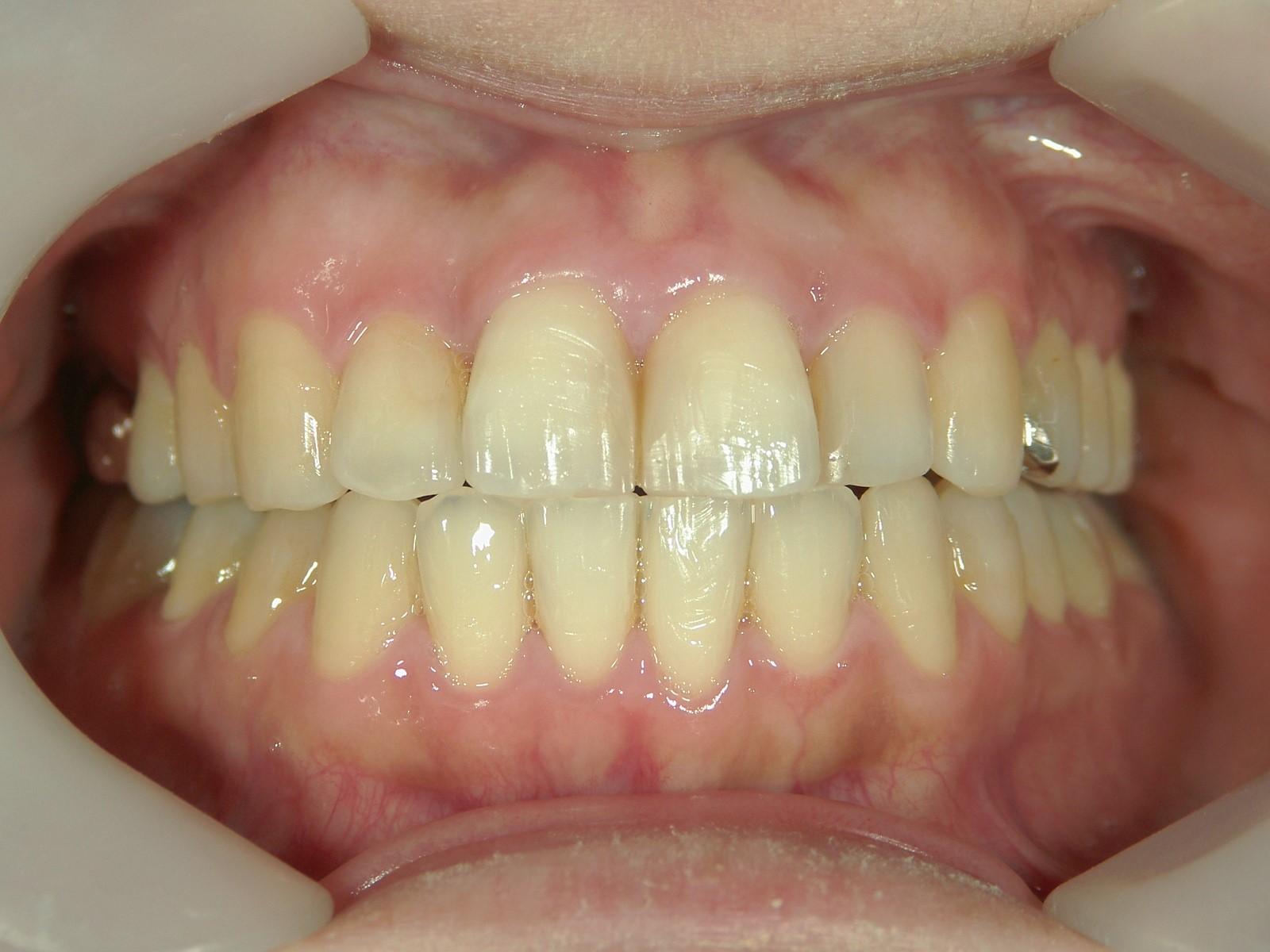 全顎ワイヤー矯正 症例(29)