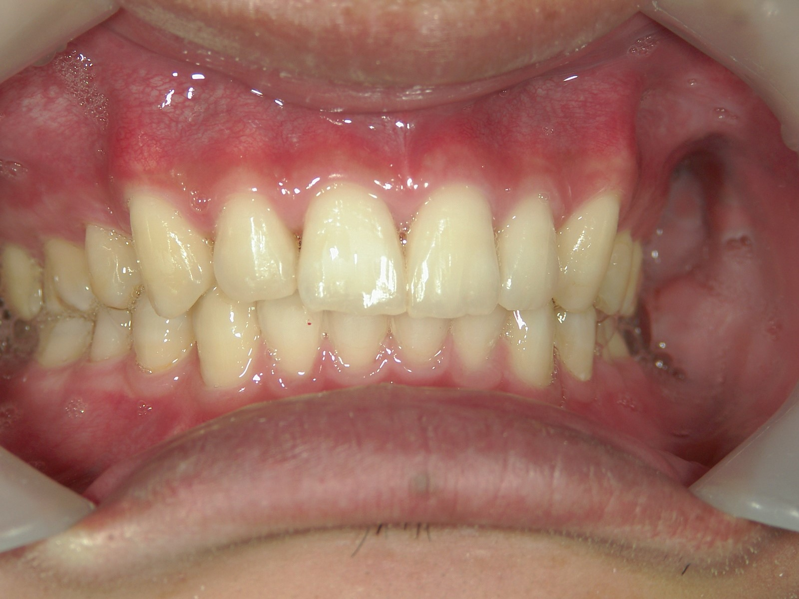 全顎ワイヤー矯正 症例(38)