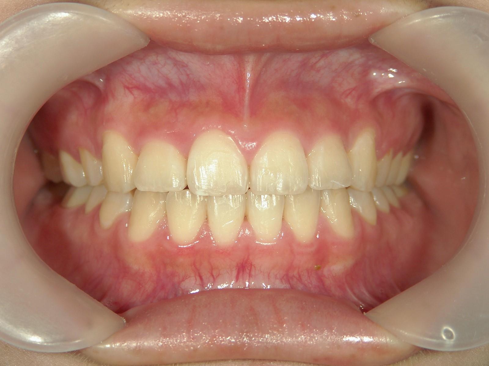 全顎ワイヤー矯正 症例(41)