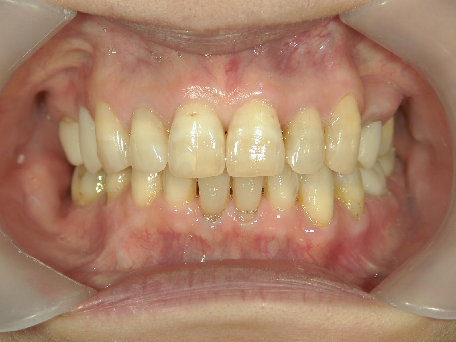 全顎ワイヤー矯正 症例(49)