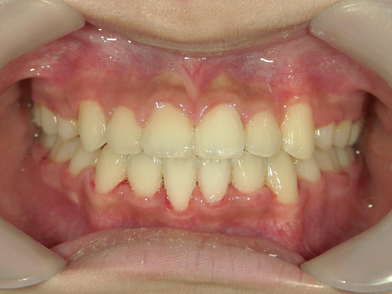 全顎ワイヤー矯正 症例(51)