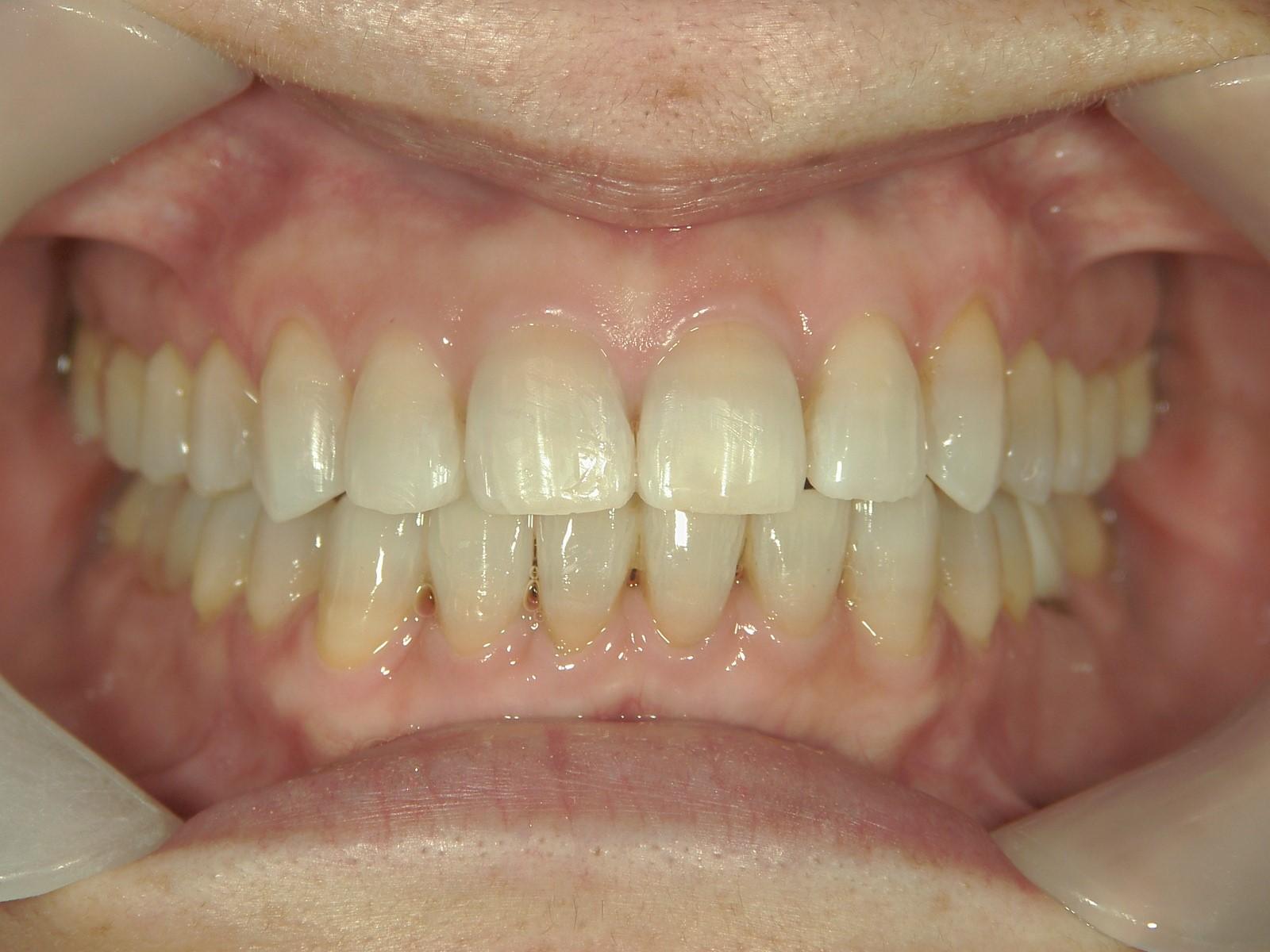 全顎ワイヤー矯正 症例(54)