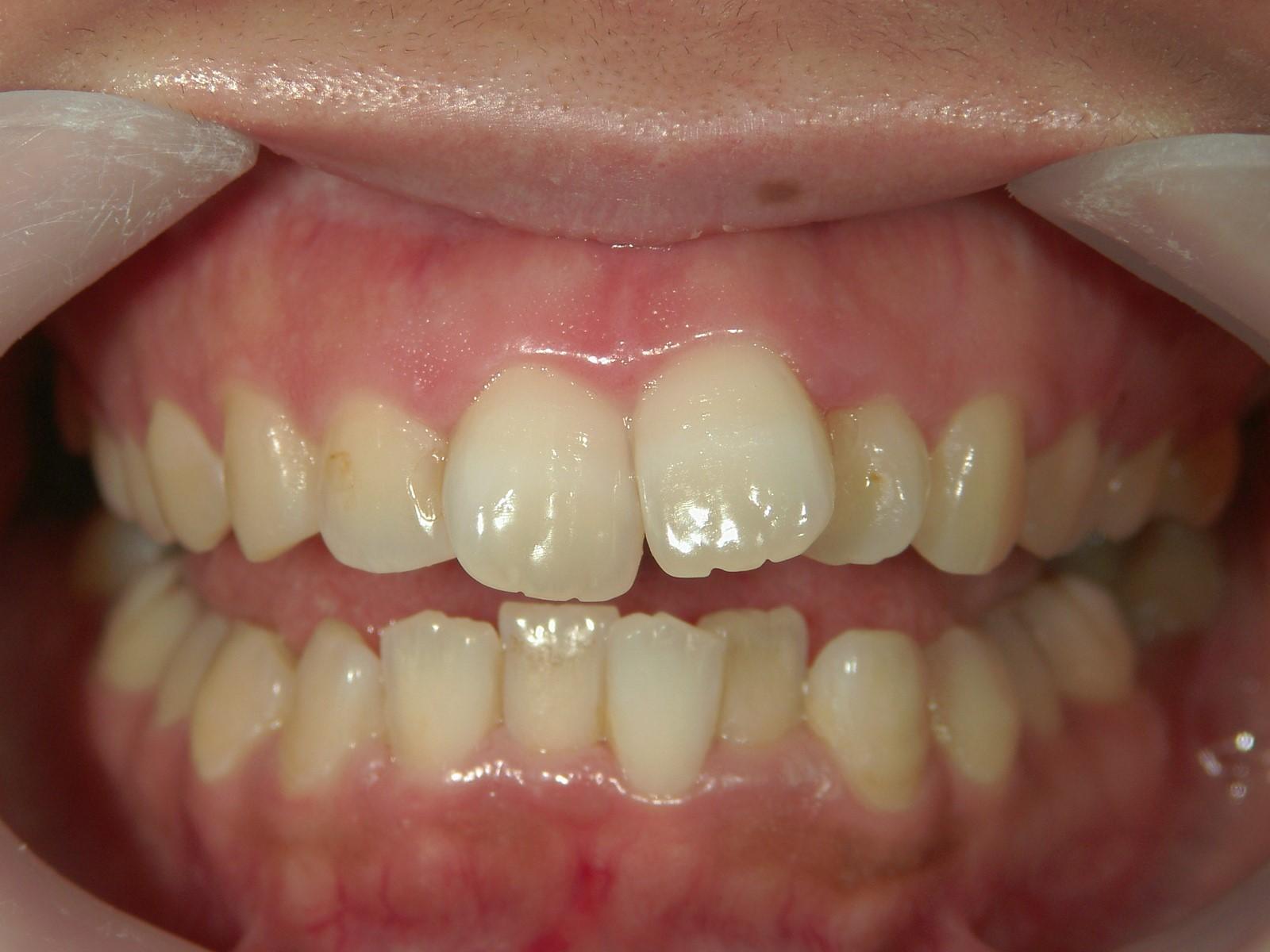 全顎ワイヤー矯正 症例(22)