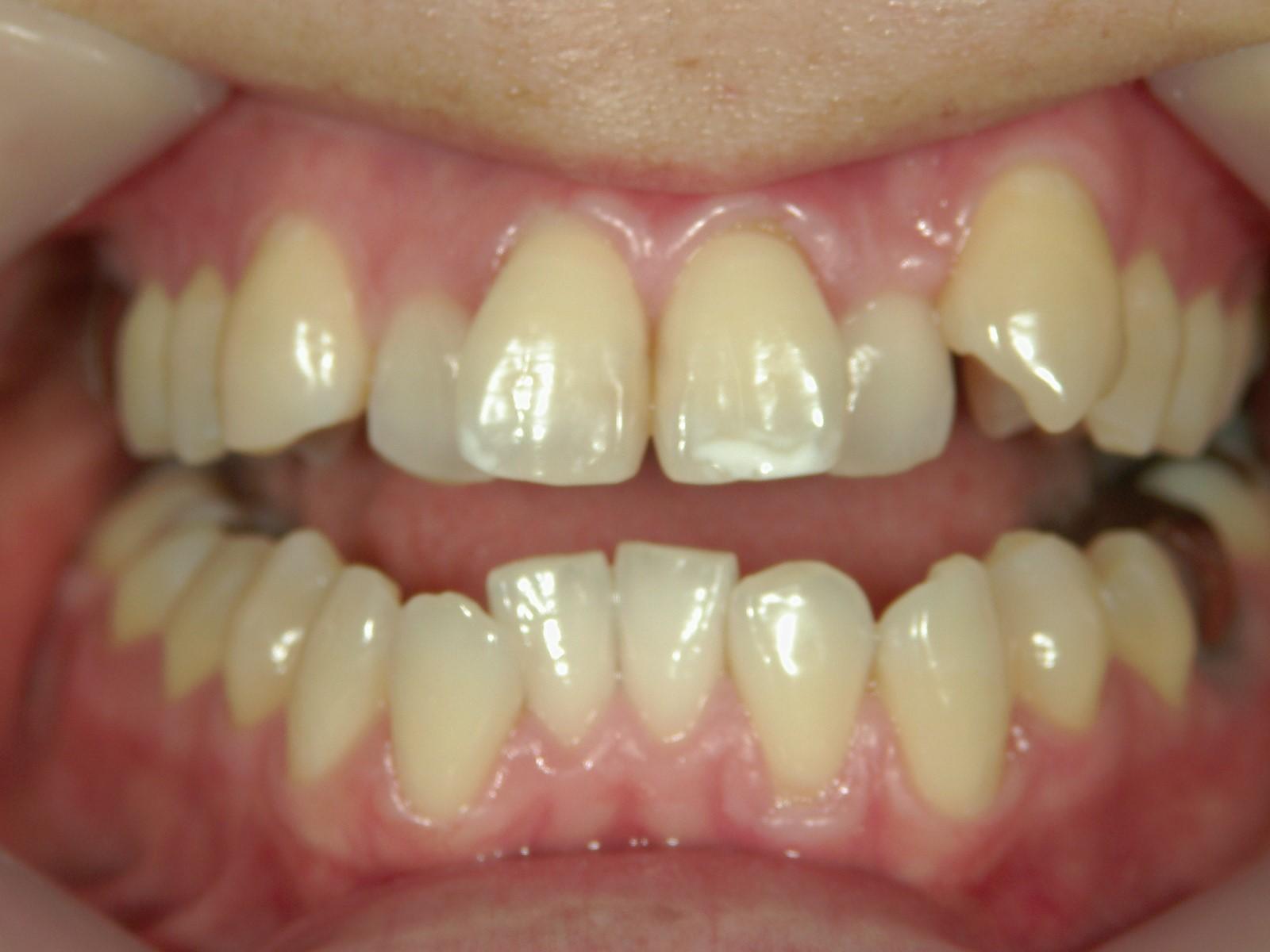 全顎ワイヤー矯正 症例(26)