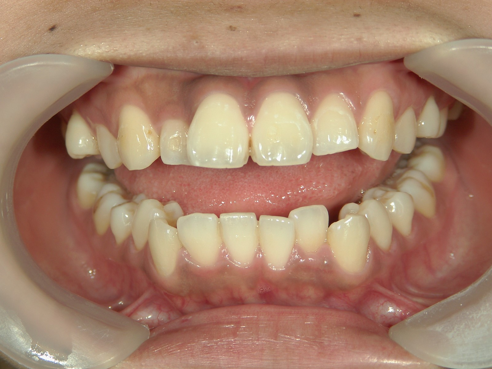 全顎ワイヤー矯正 症例(58)