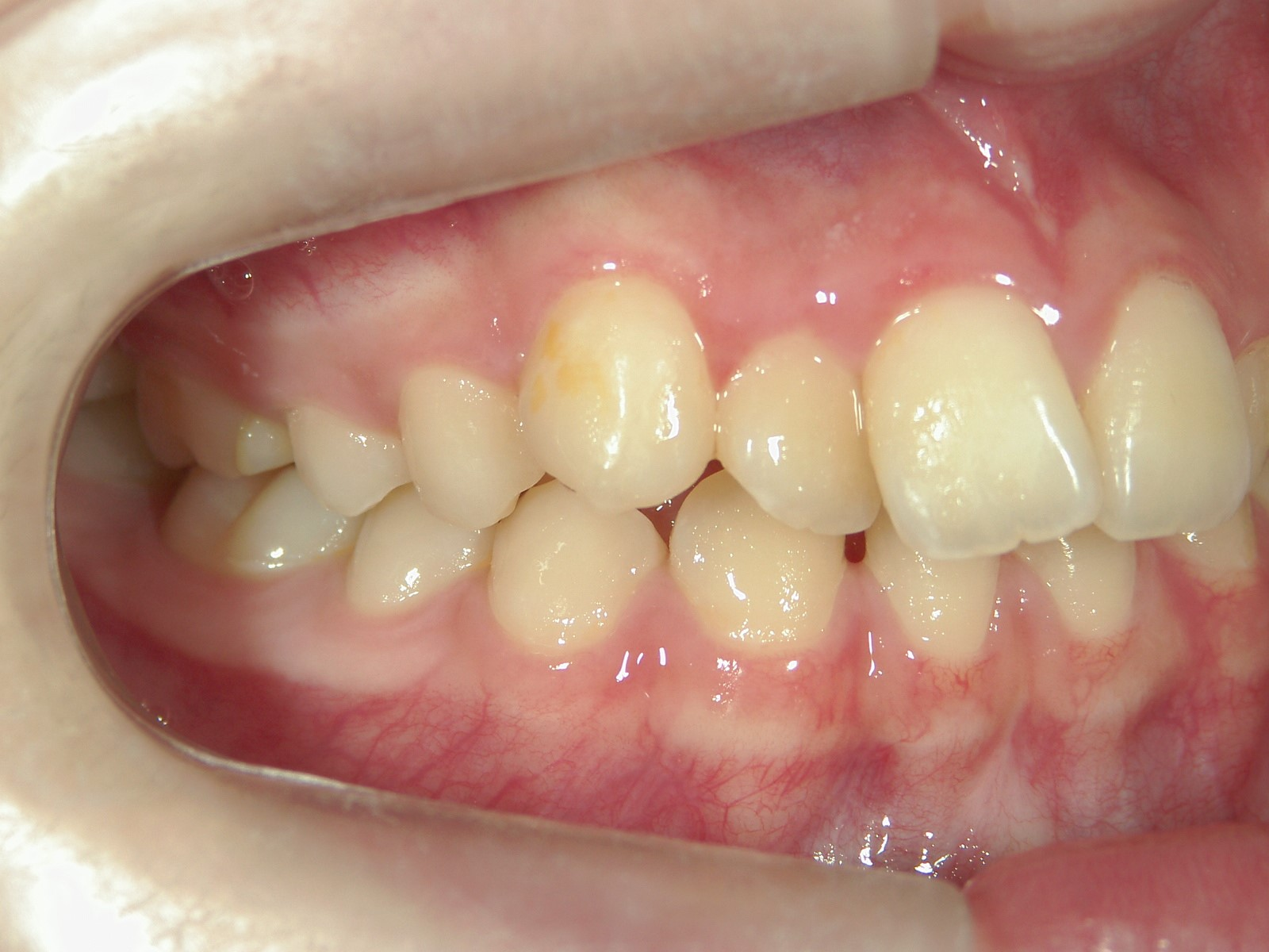 舌側ワイヤー矯正 症例(11)
