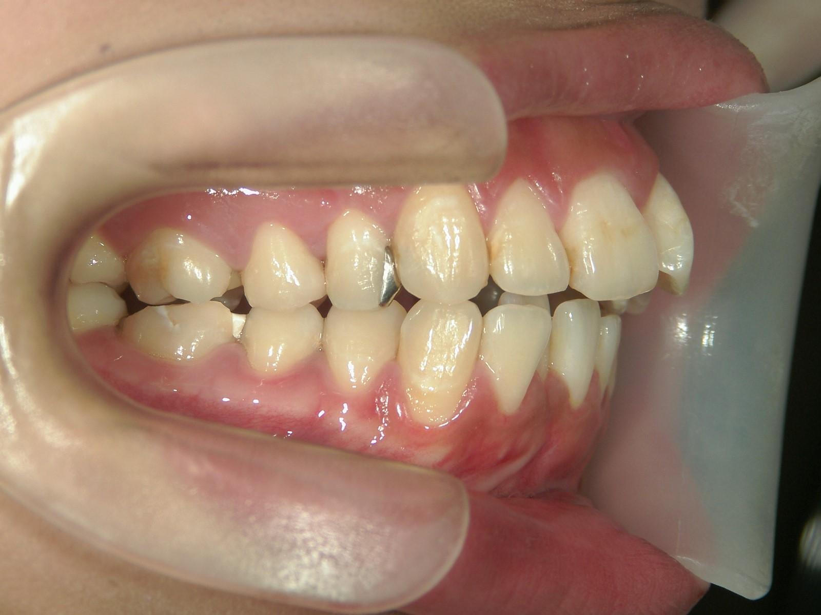 舌側ワイヤー矯正 症例(20)