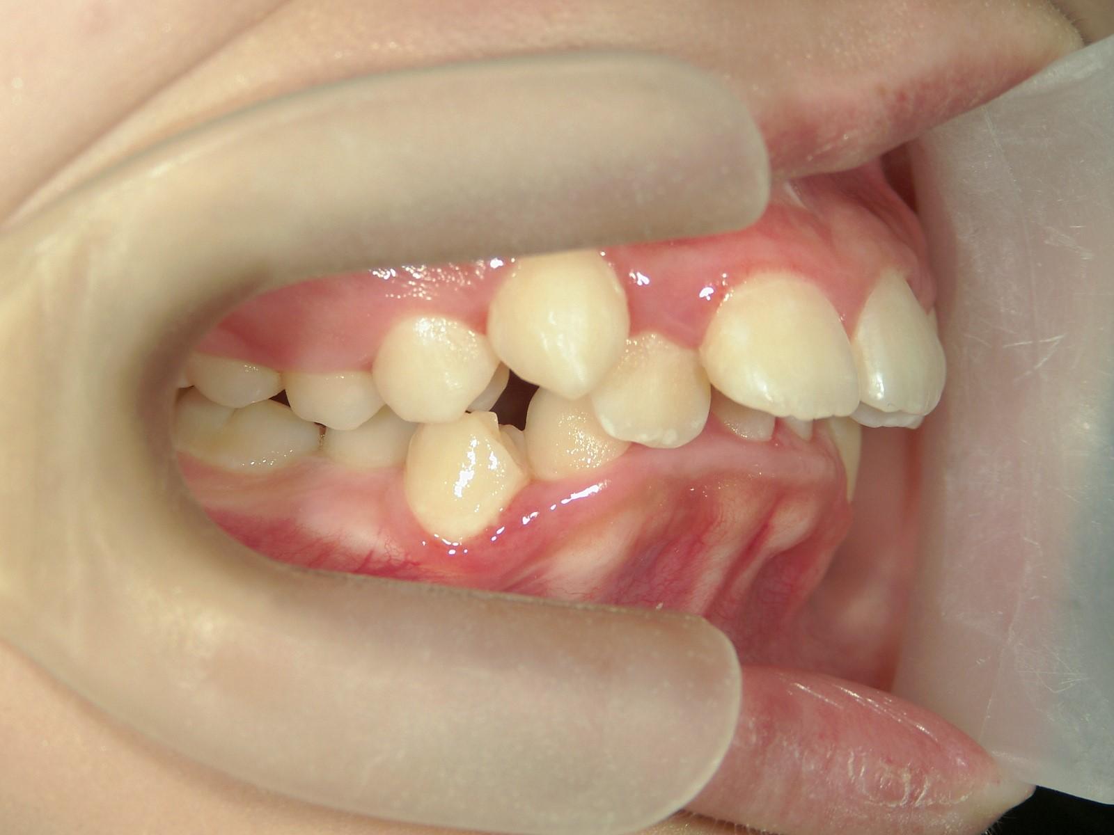 舌側ワイヤー矯正 症例(21)