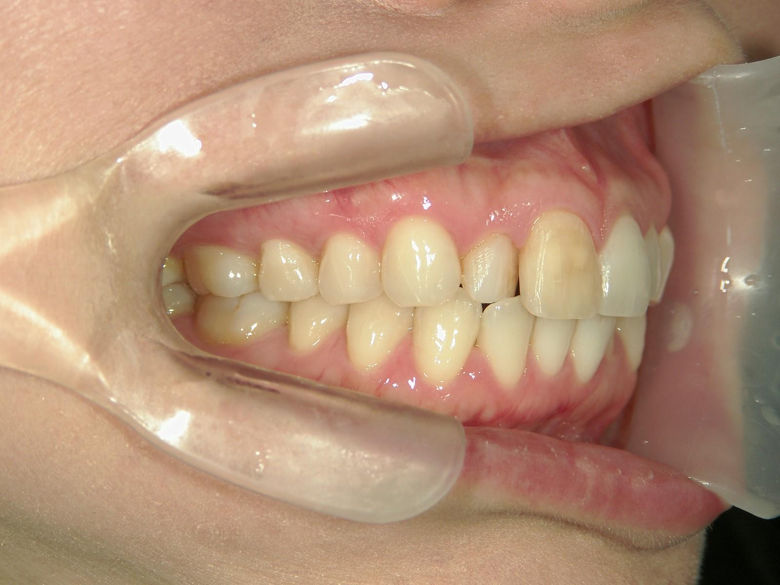 舌側ワイヤー矯正 症例(22)