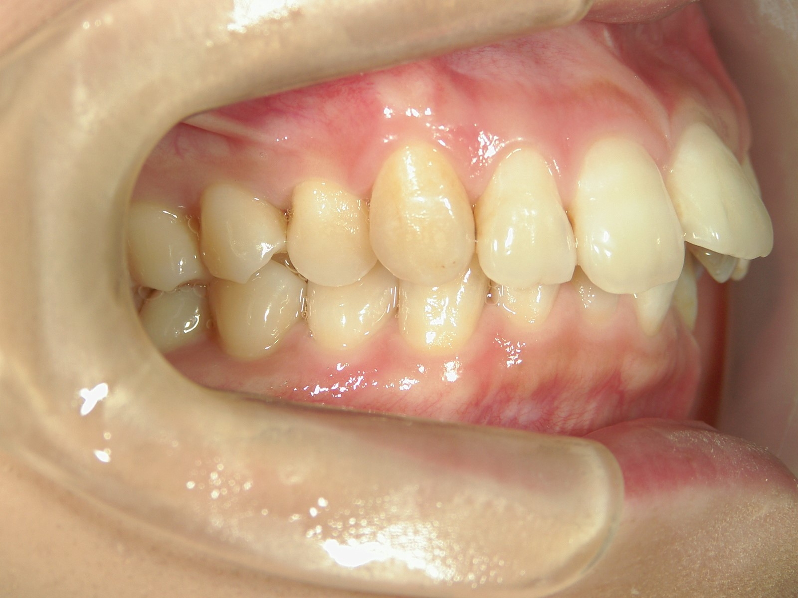 舌側ワイヤー矯正 症例(24)