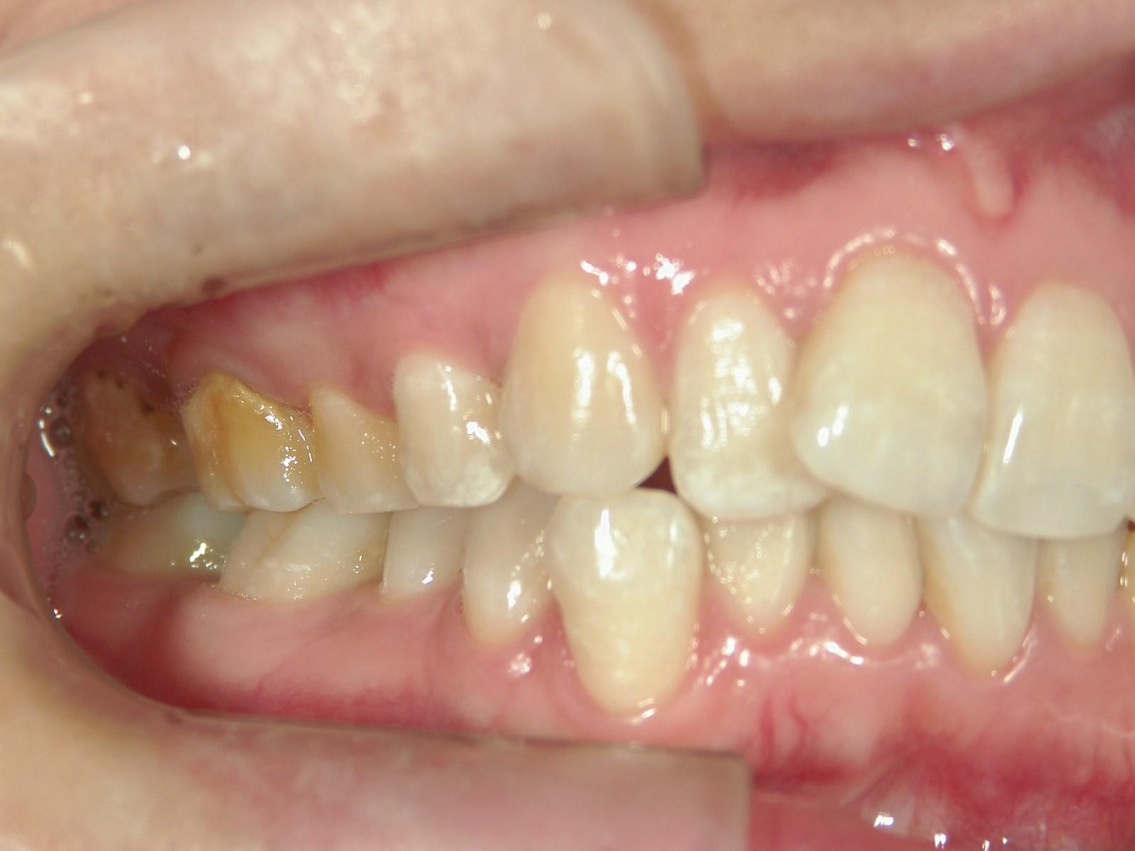全顎ワイヤー矯正 症例(25)