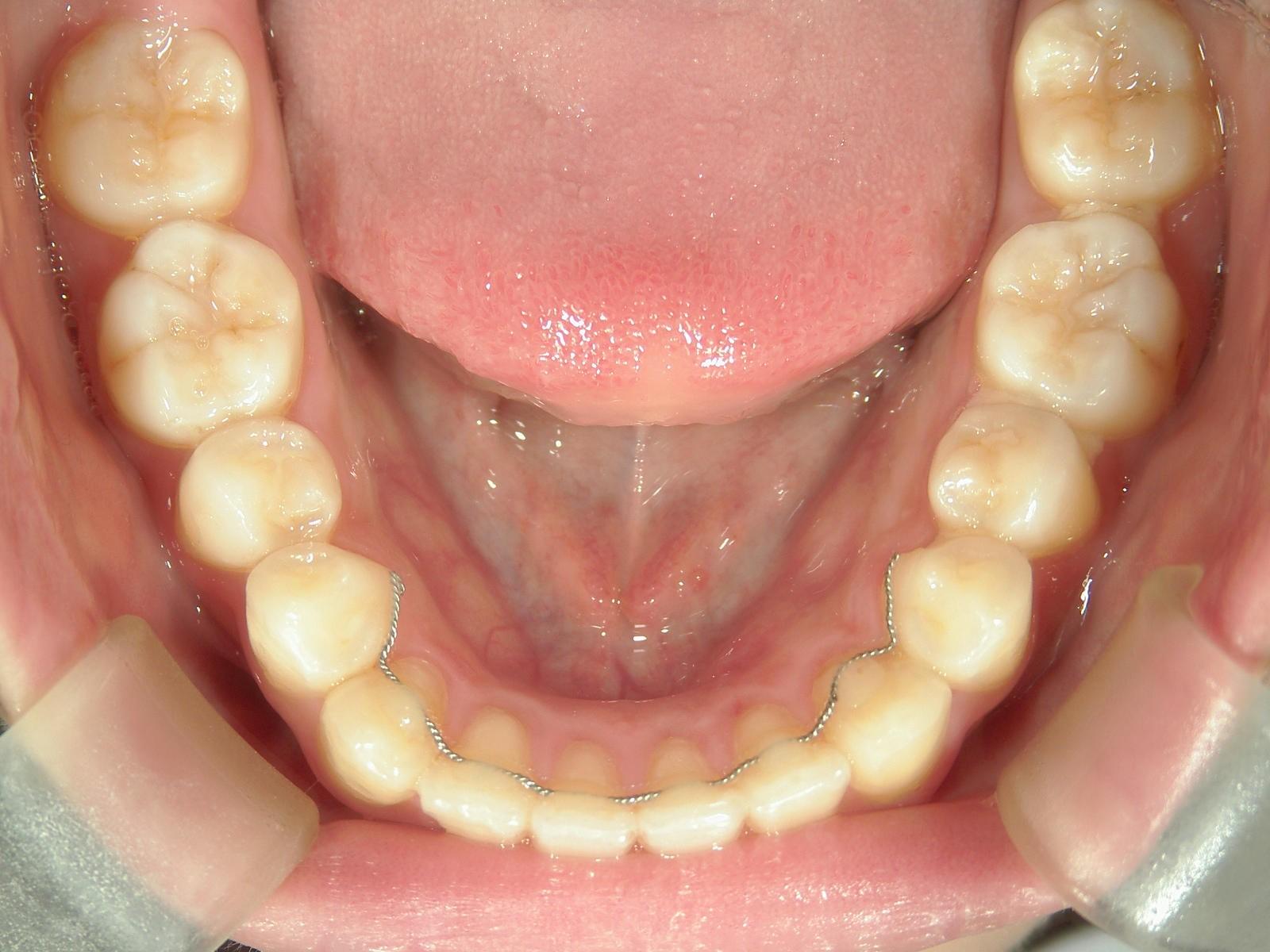 全顎ワイヤー矯正 症例(27)
