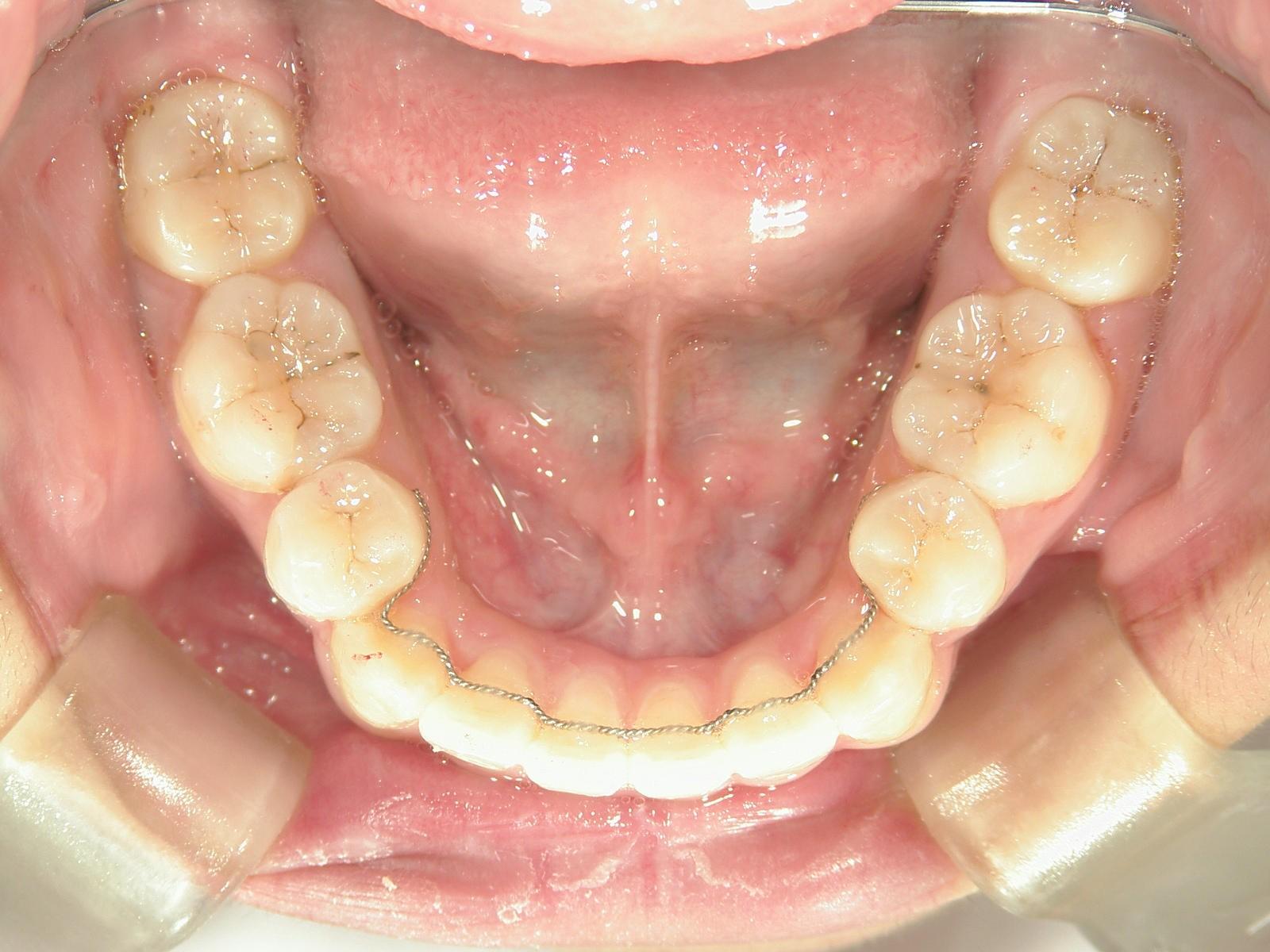 全顎ワイヤー矯正 症例(33)