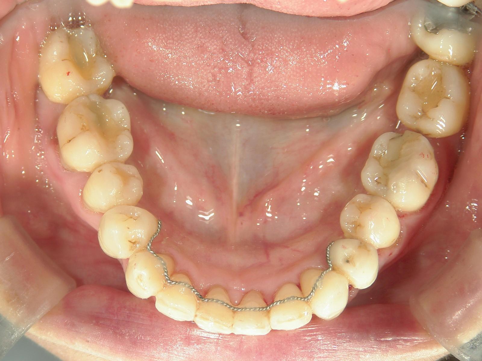 全顎ワイヤー矯正 症例(35)