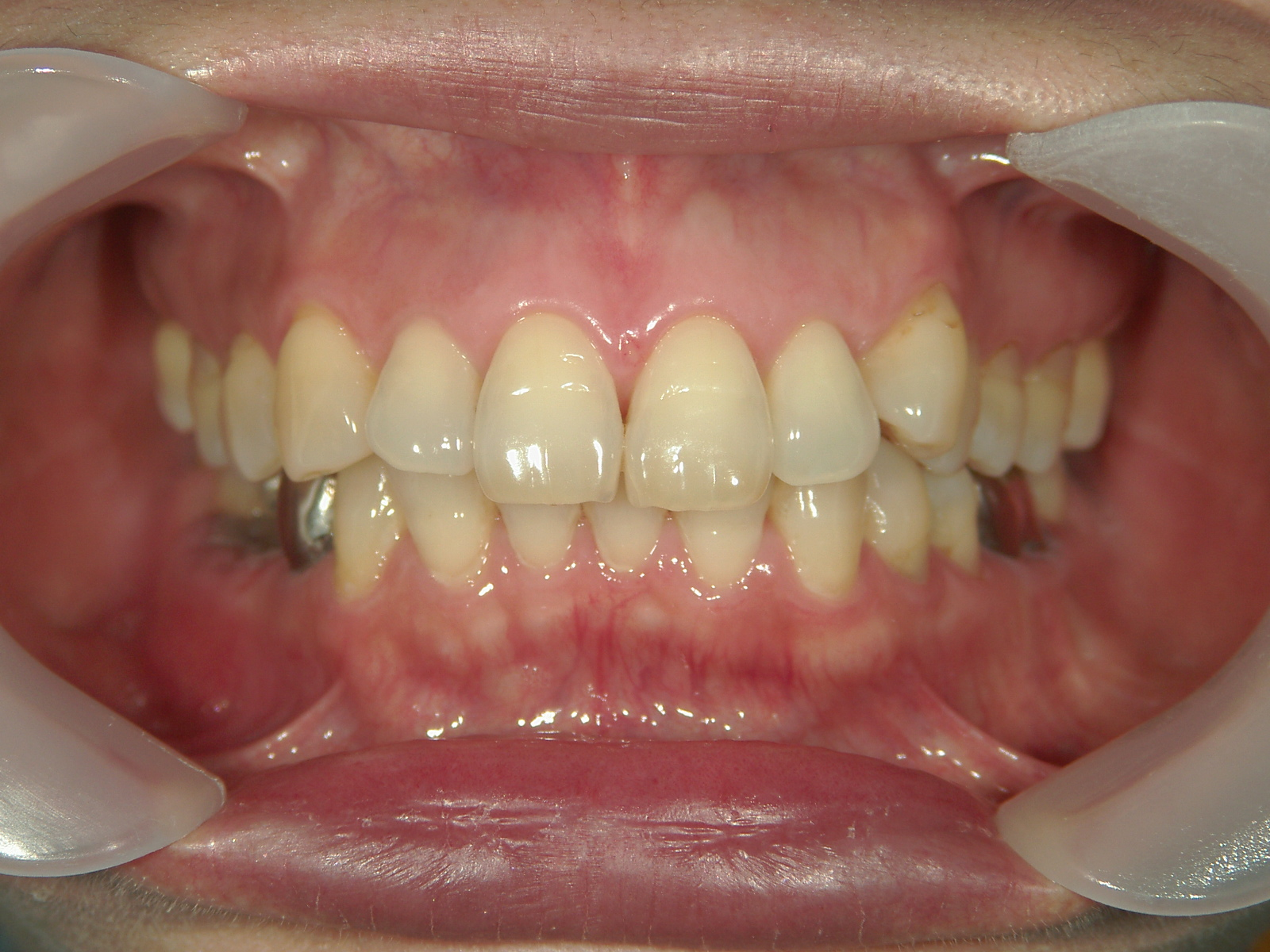 抜歯欠損症例(6)右下大臼歯 欠損・左下大臼歯 抜歯
