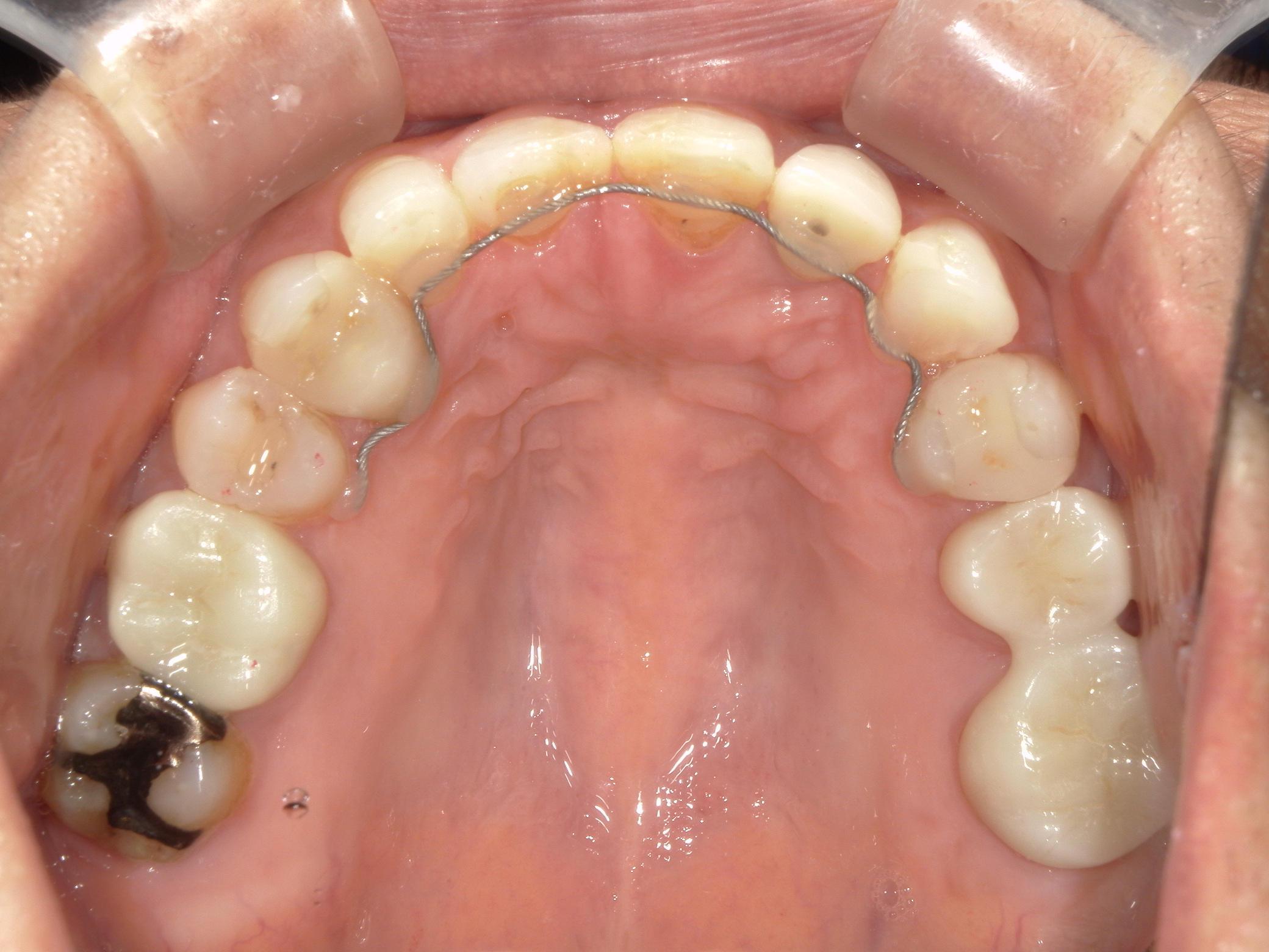 全顎ワイヤー矯正 症例(60)