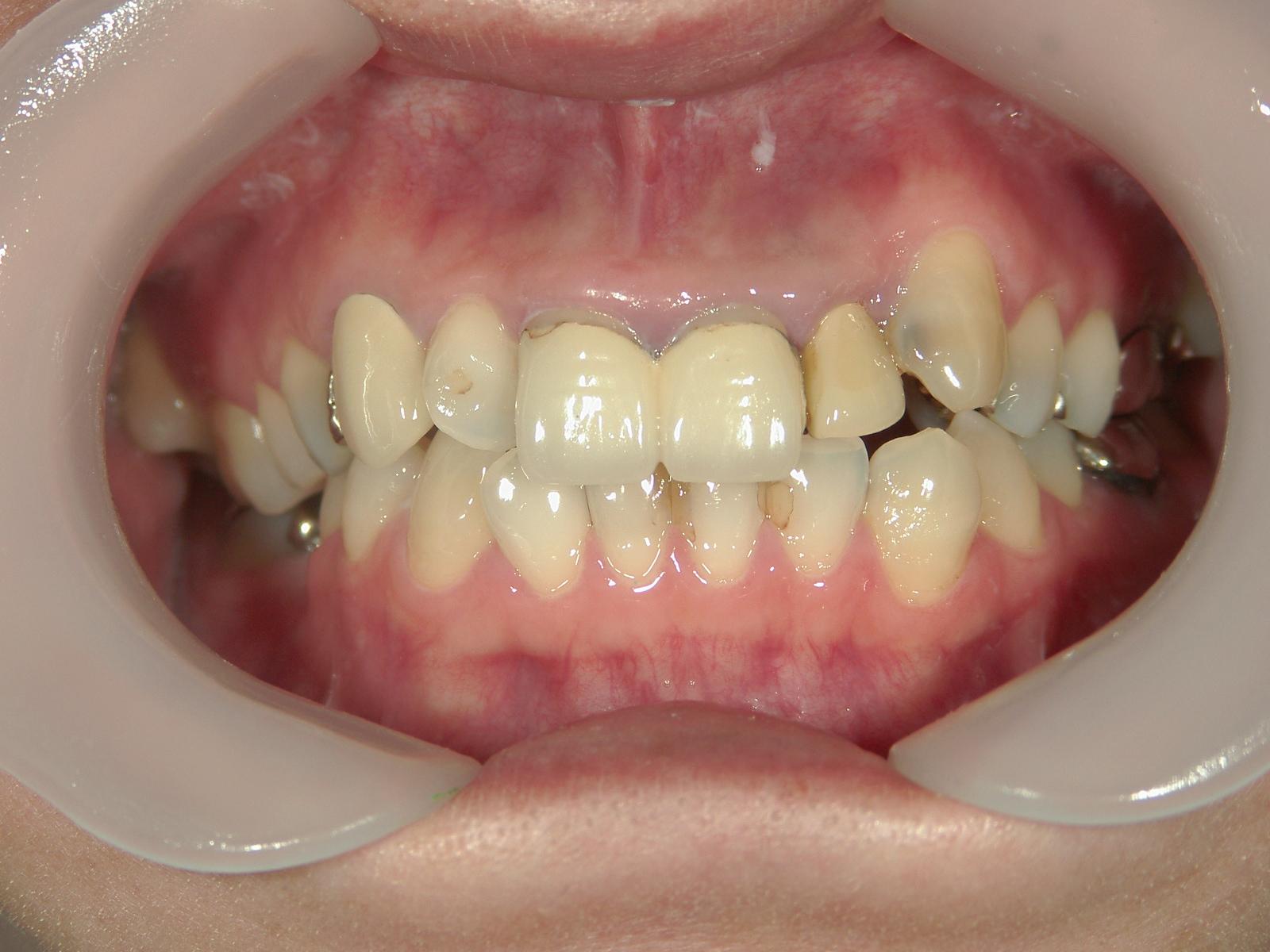 抜歯欠損症例(7)右下大臼歯 欠損・左下大臼歯 抜歯