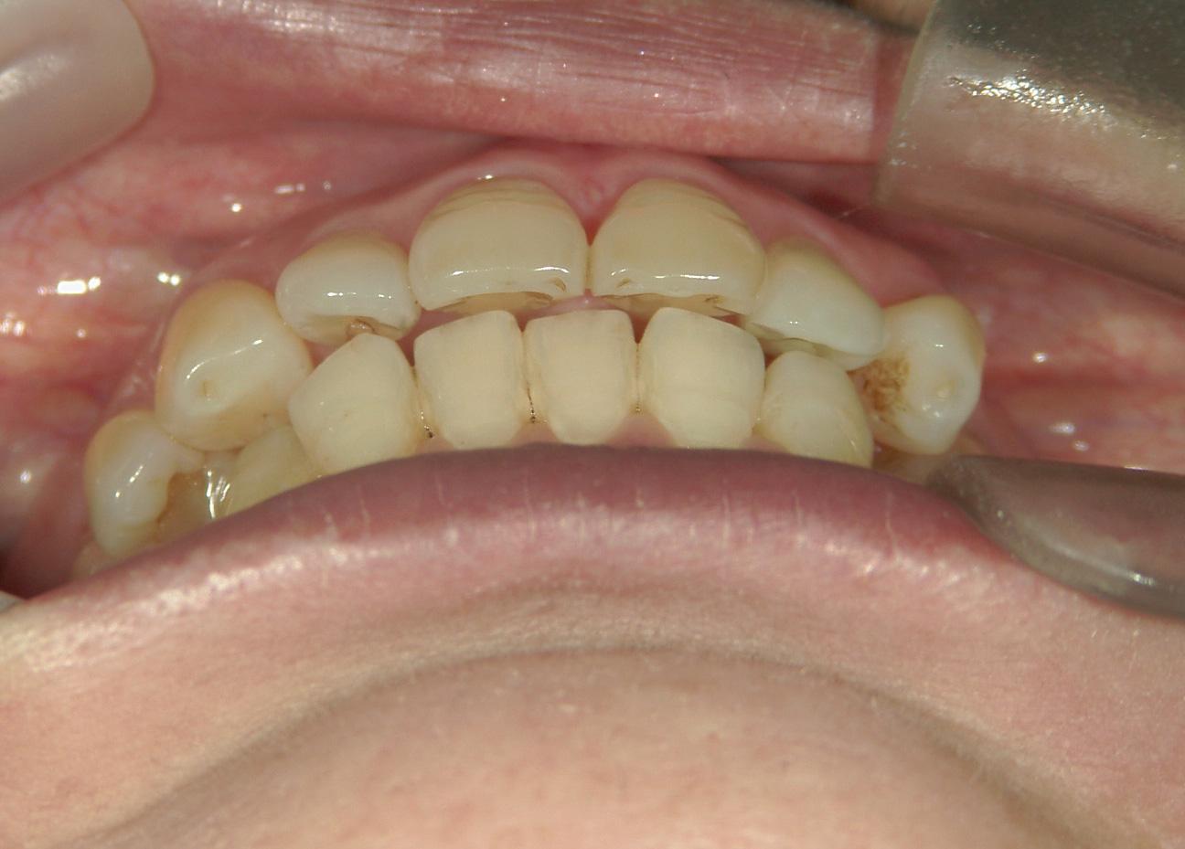 全顎ワイヤー矯正 症例(64)