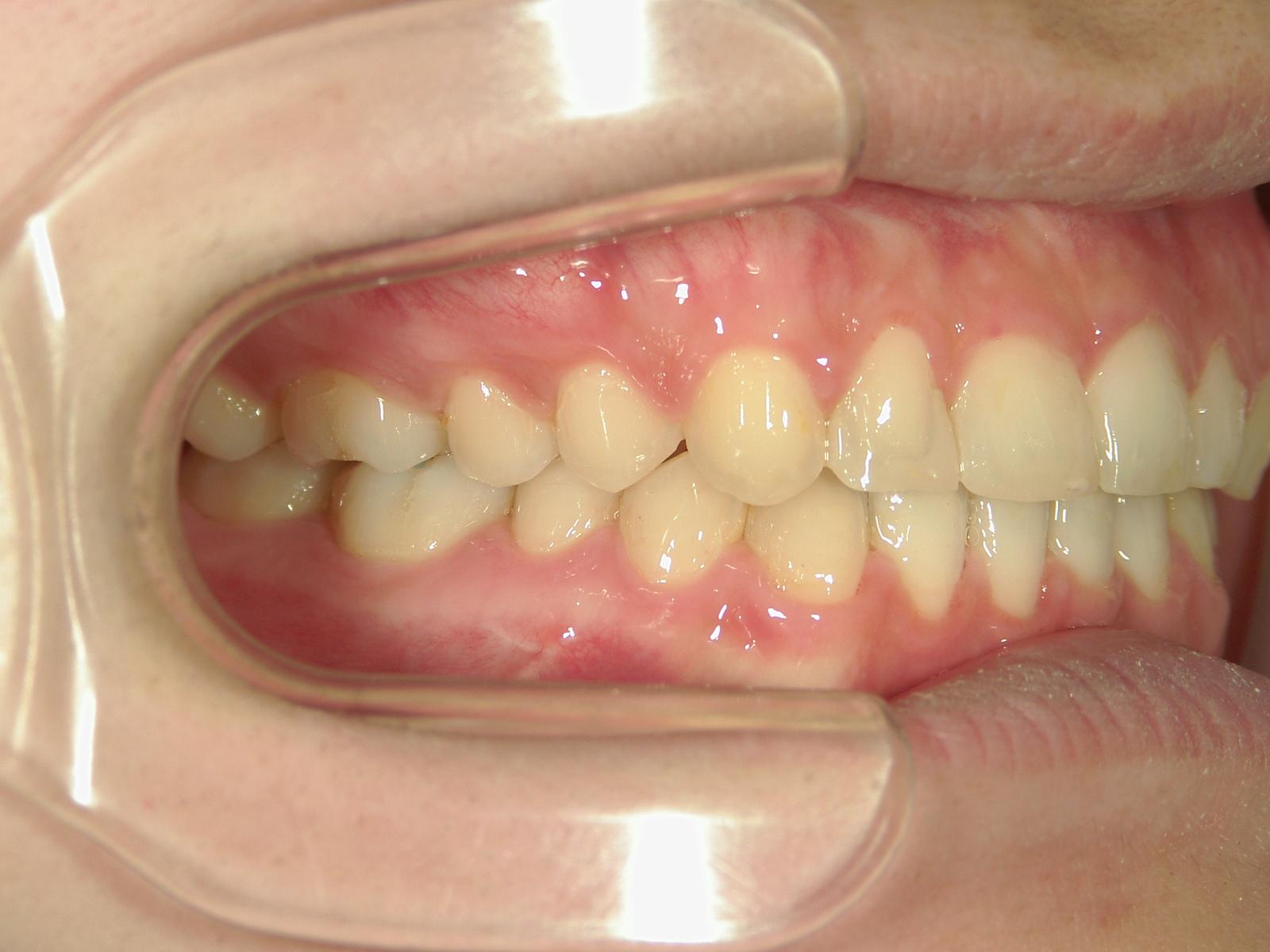 全顎ワイヤー矯正 症例(61)