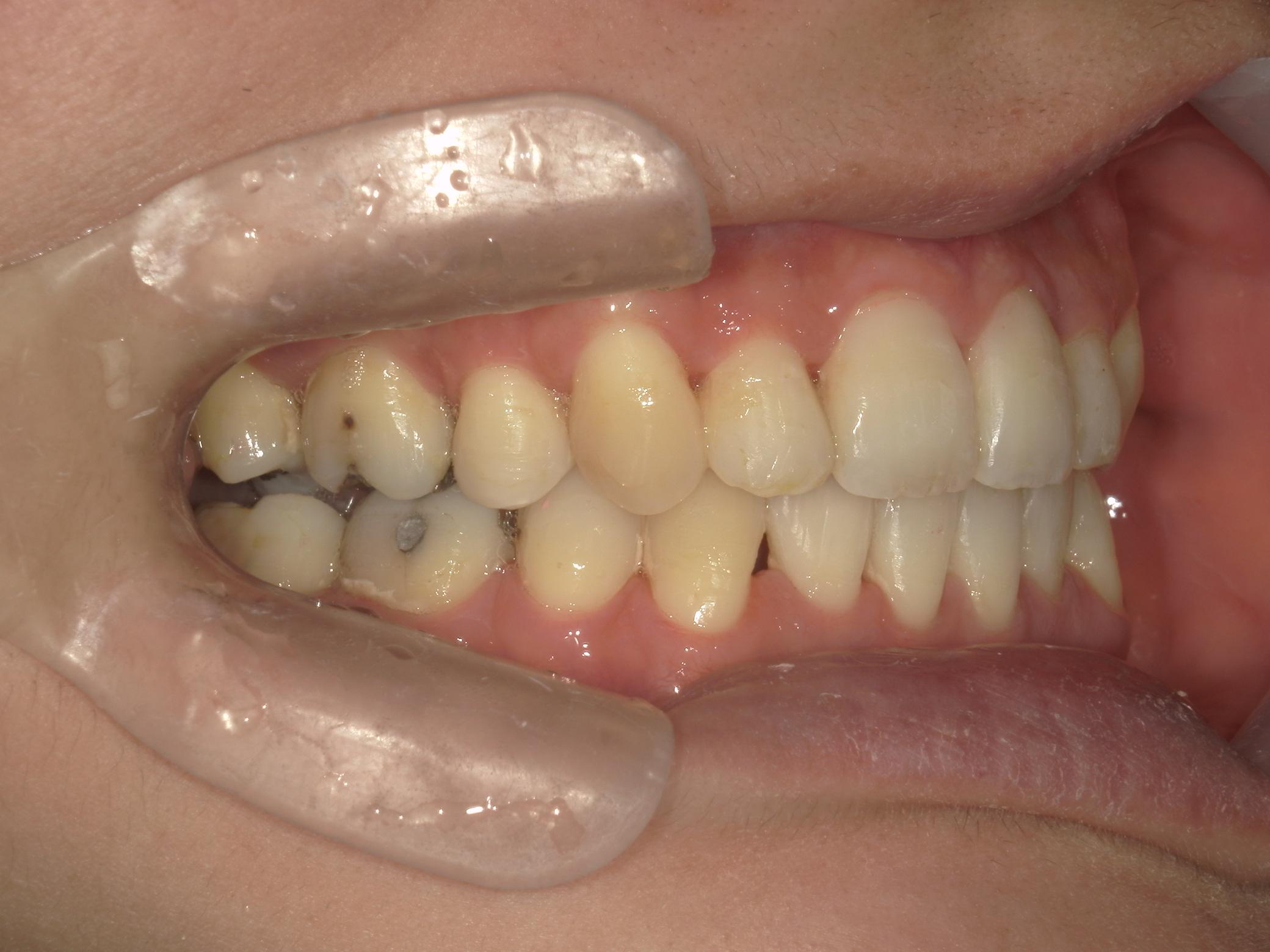 全顎ワイヤー矯正 症例(62)