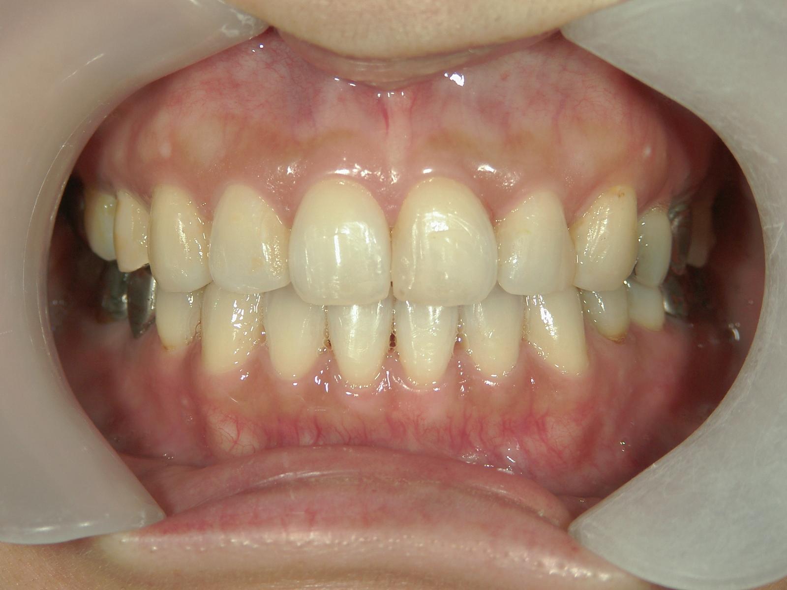 全顎ワイヤー矯正 症例(59)