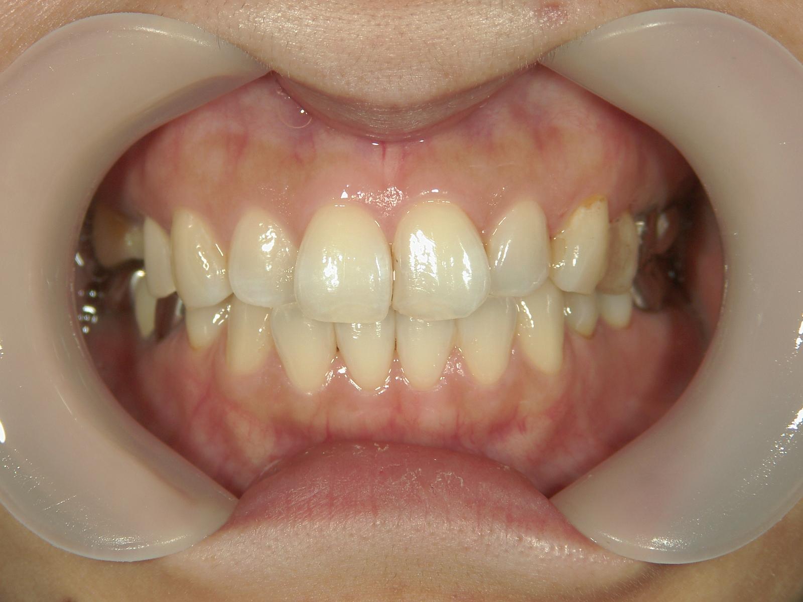 抜歯欠損症例(5)右上小臼歯 抜歯