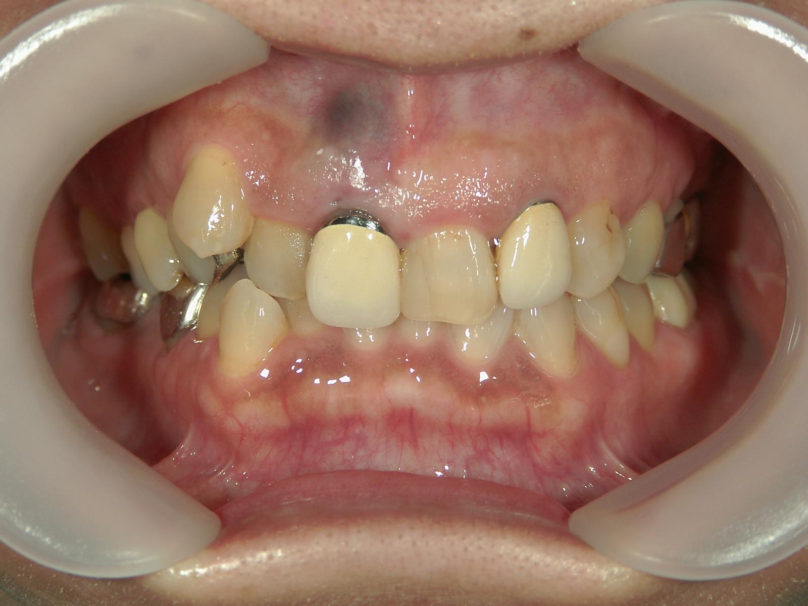 前歯部抜歯閉鎖症例(4)右上前歯部1本抜歯